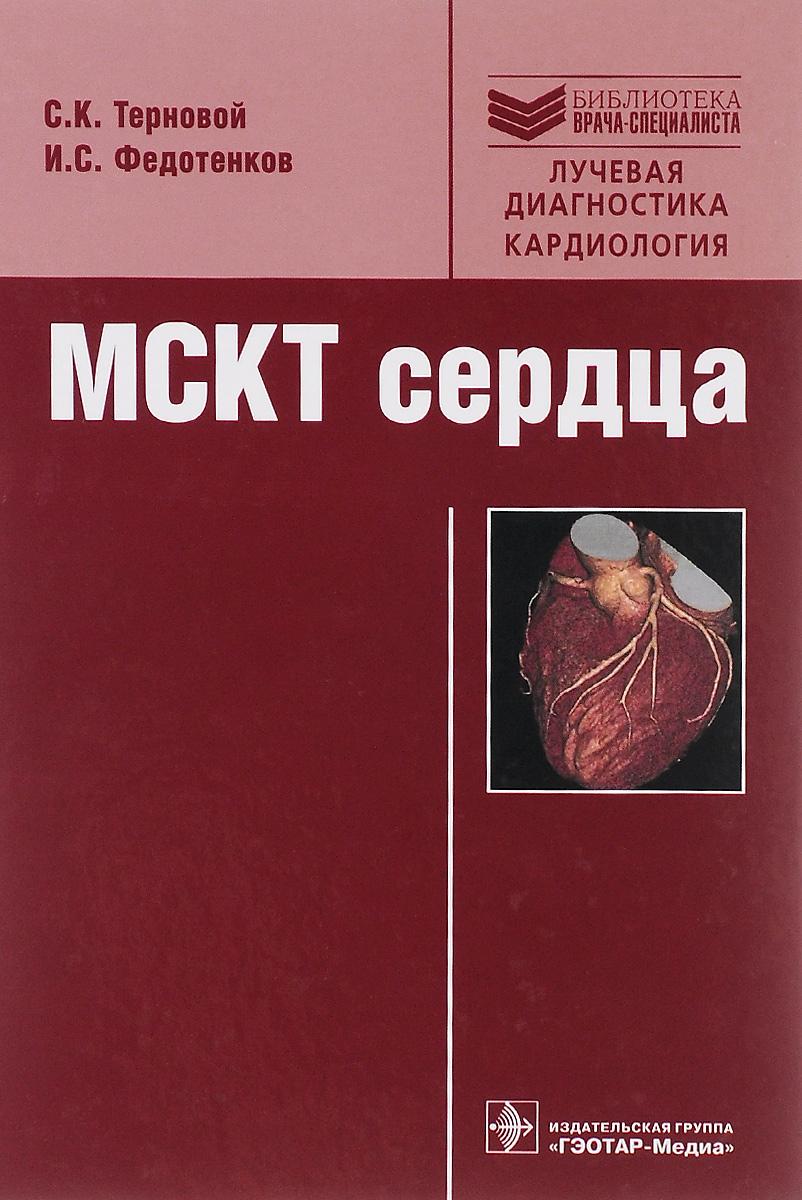 МСКТ сердца. Руководство. С. К. Терновой, И. С. Федотенков