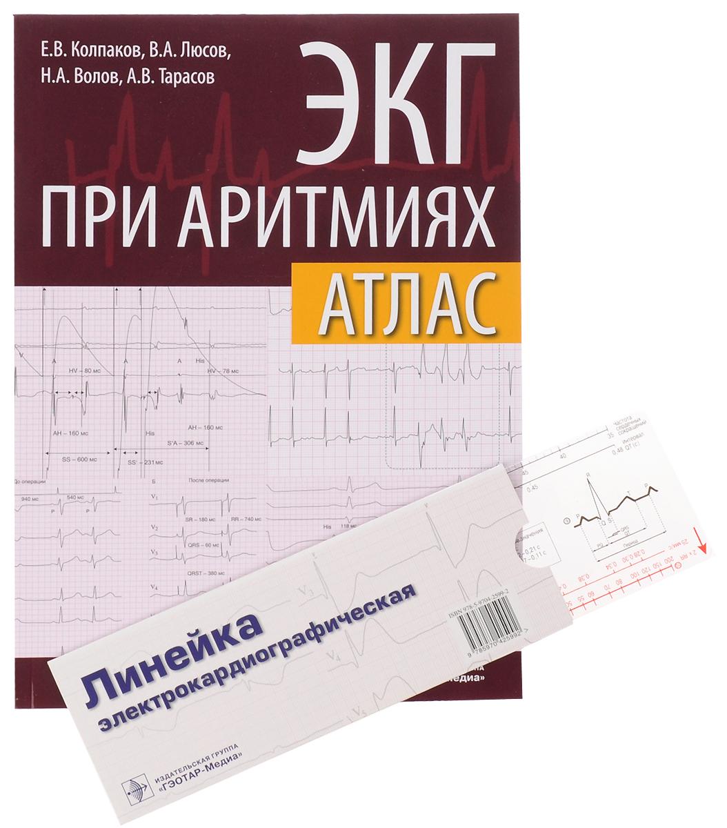 ЭКГ при аритмиях. Атлас