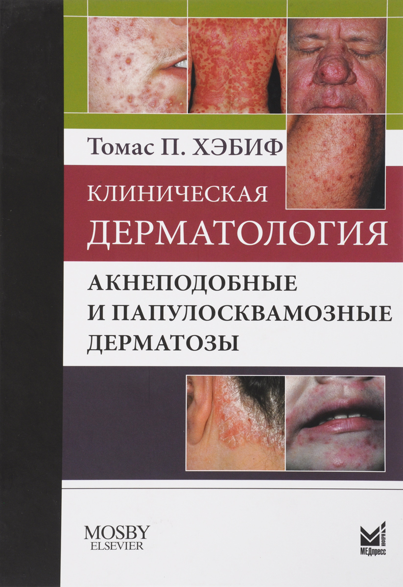 Клиническая дерматология. Акнеподобные и папулосквамозные дерматозы. Томас П. Хэбиф