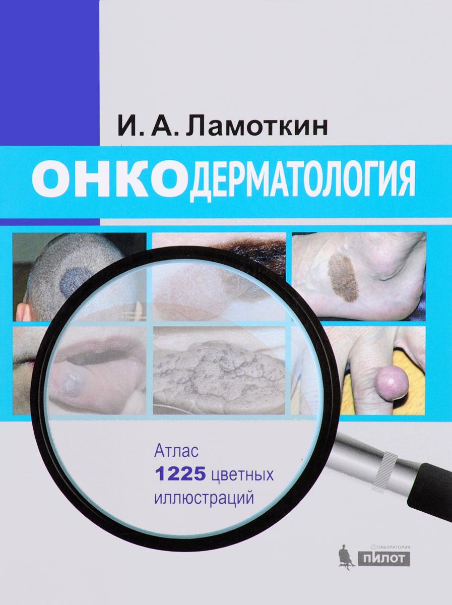 Онкодерматология. Атлас. Учебное пособие
