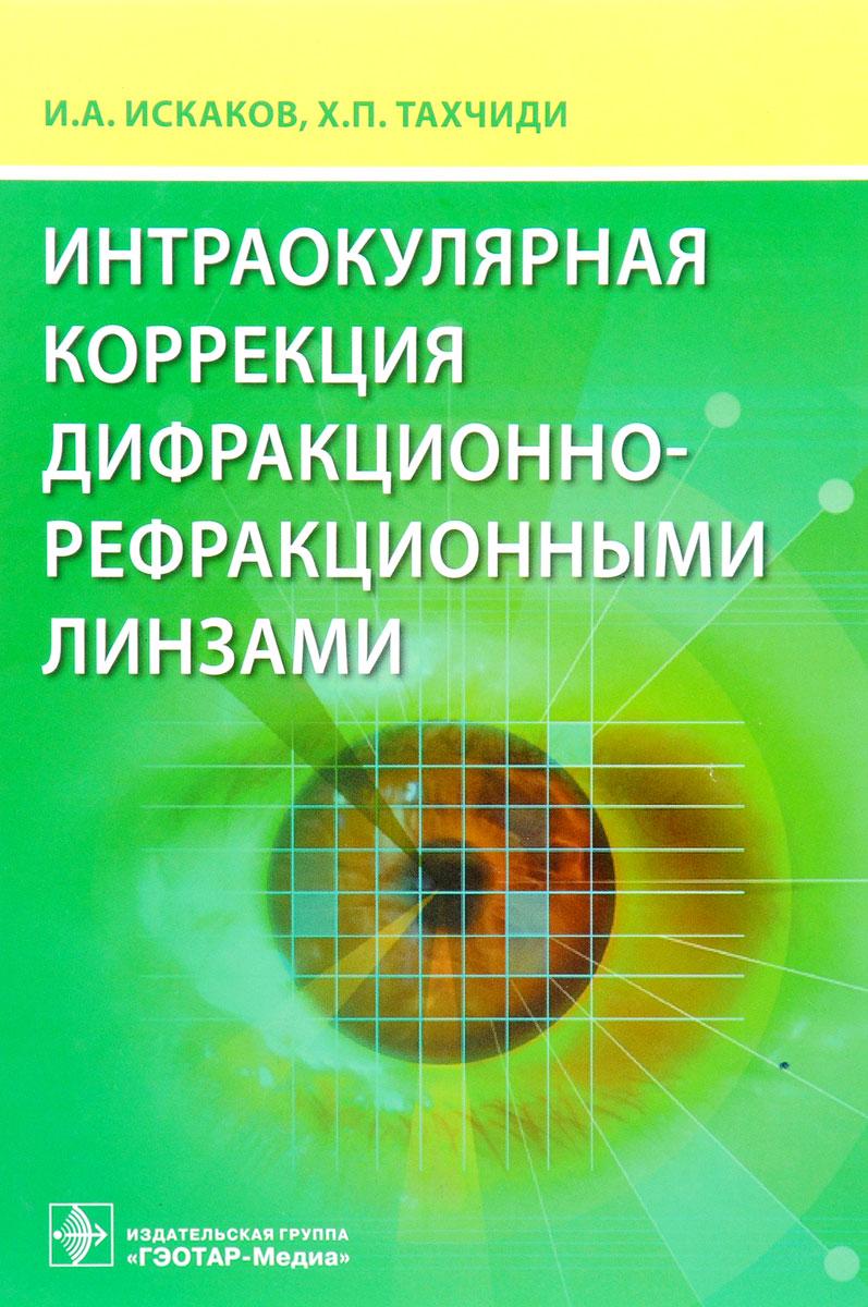 Интраокулярная коррекция дифракционно-рефракционными линзами. И. А. Искаков, Х. П. Тахчиди