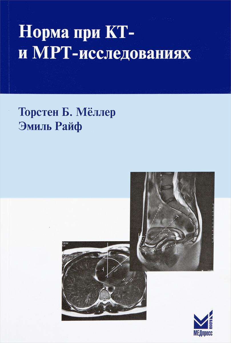 Торстен Б. Мёллер, Эмиль Райф Норма при КТ- и МРТ-исследованиях т б меллер норма при рентгенологических исследованиях