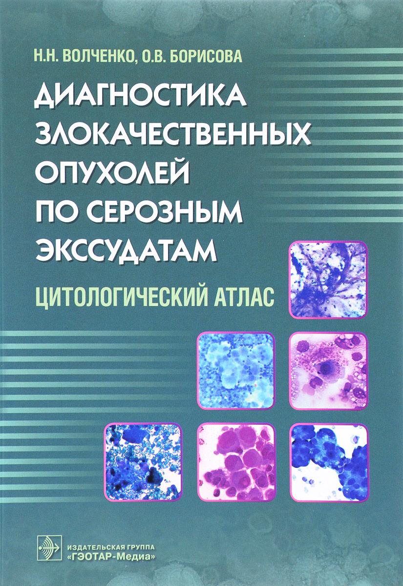 Диагностика злокачественных опухолей по серозным экссудатам.