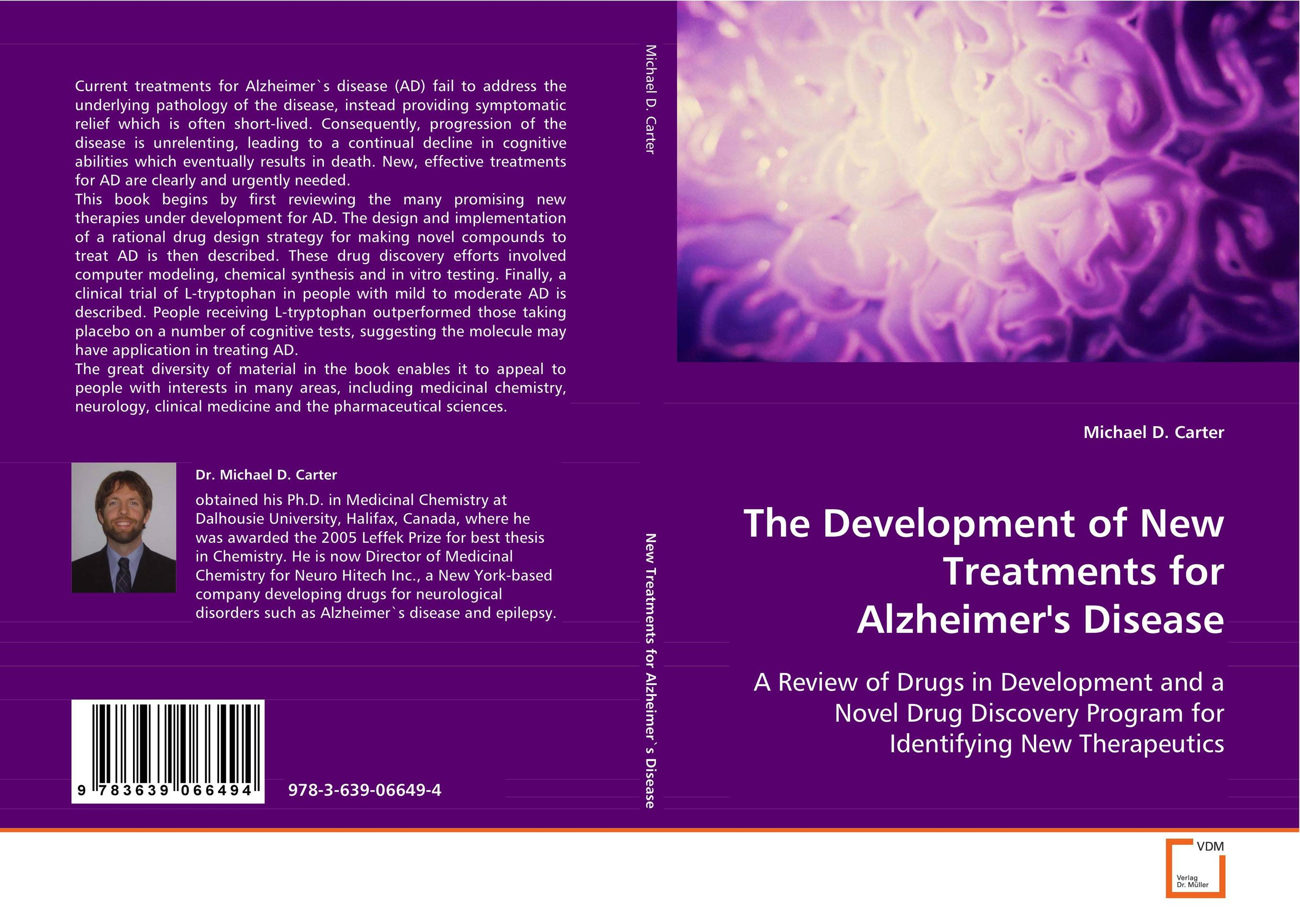 The Development of New Treatments for Alzheimer`s Disease полотенце hobby home collection dolce 70x140 см светло голубой 1501000419