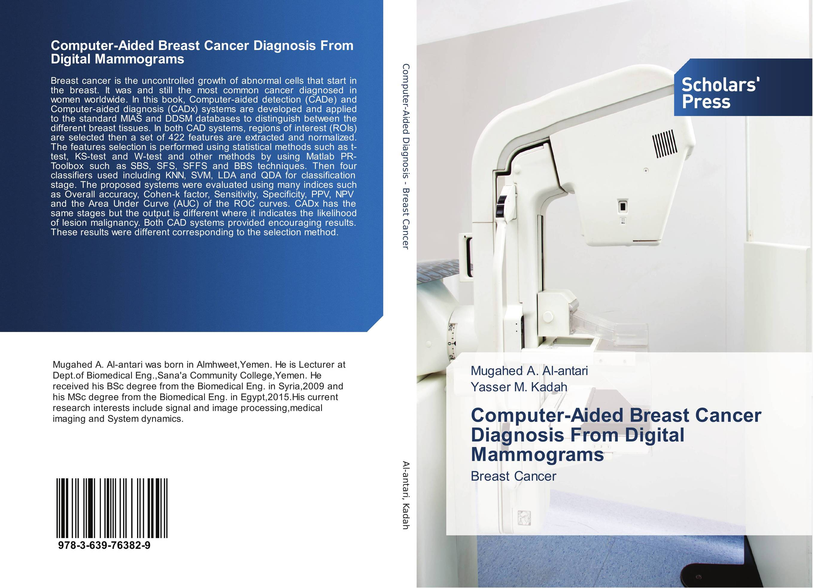 Computer-Aided Breast Cancer Diagnosis From Digital Mammograms breast cancer self exam device with the physical method and high accuracy