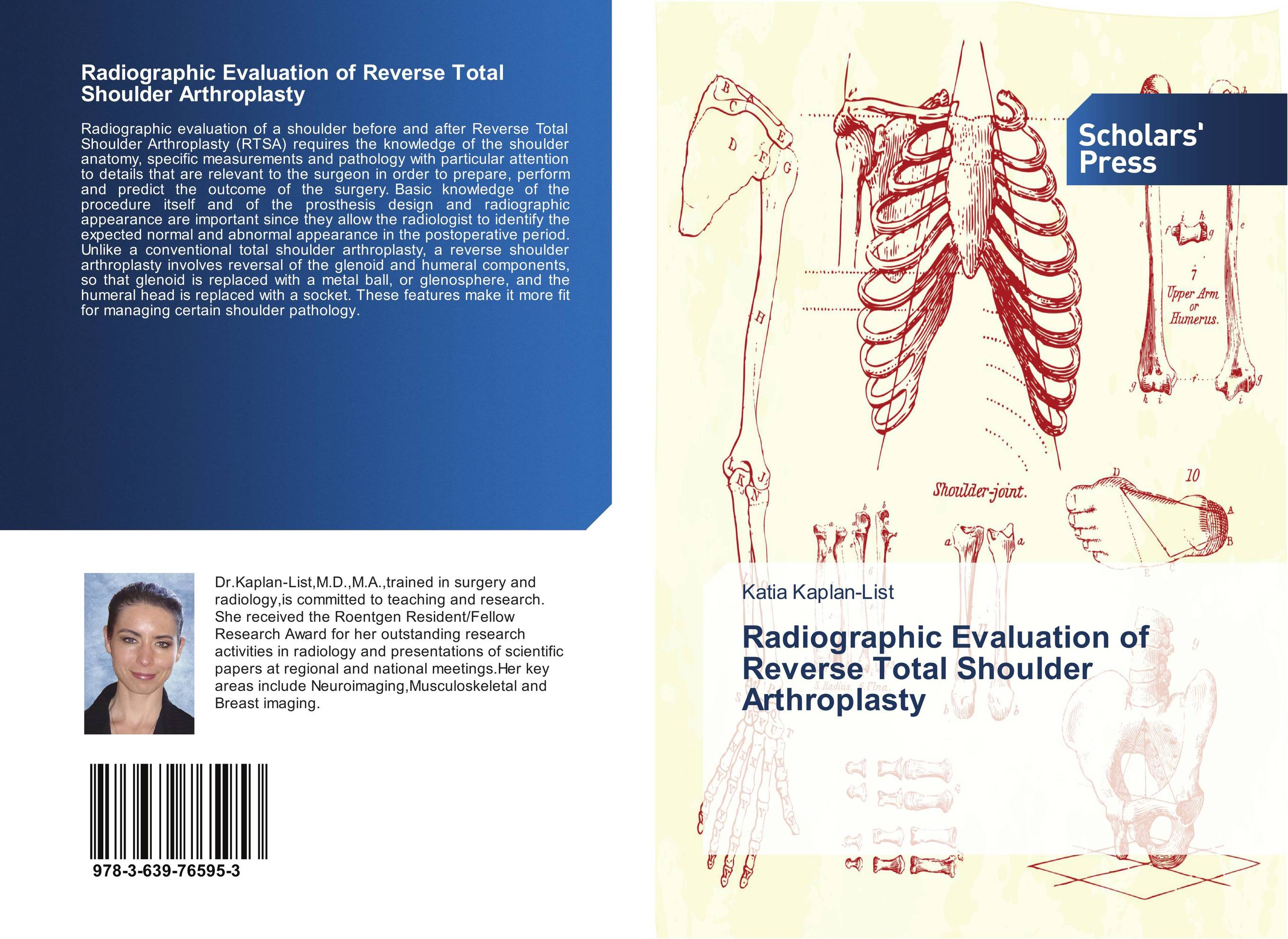 Radiographic Evaluation of Reverse Total Shoulder Arthroplasty managing the store