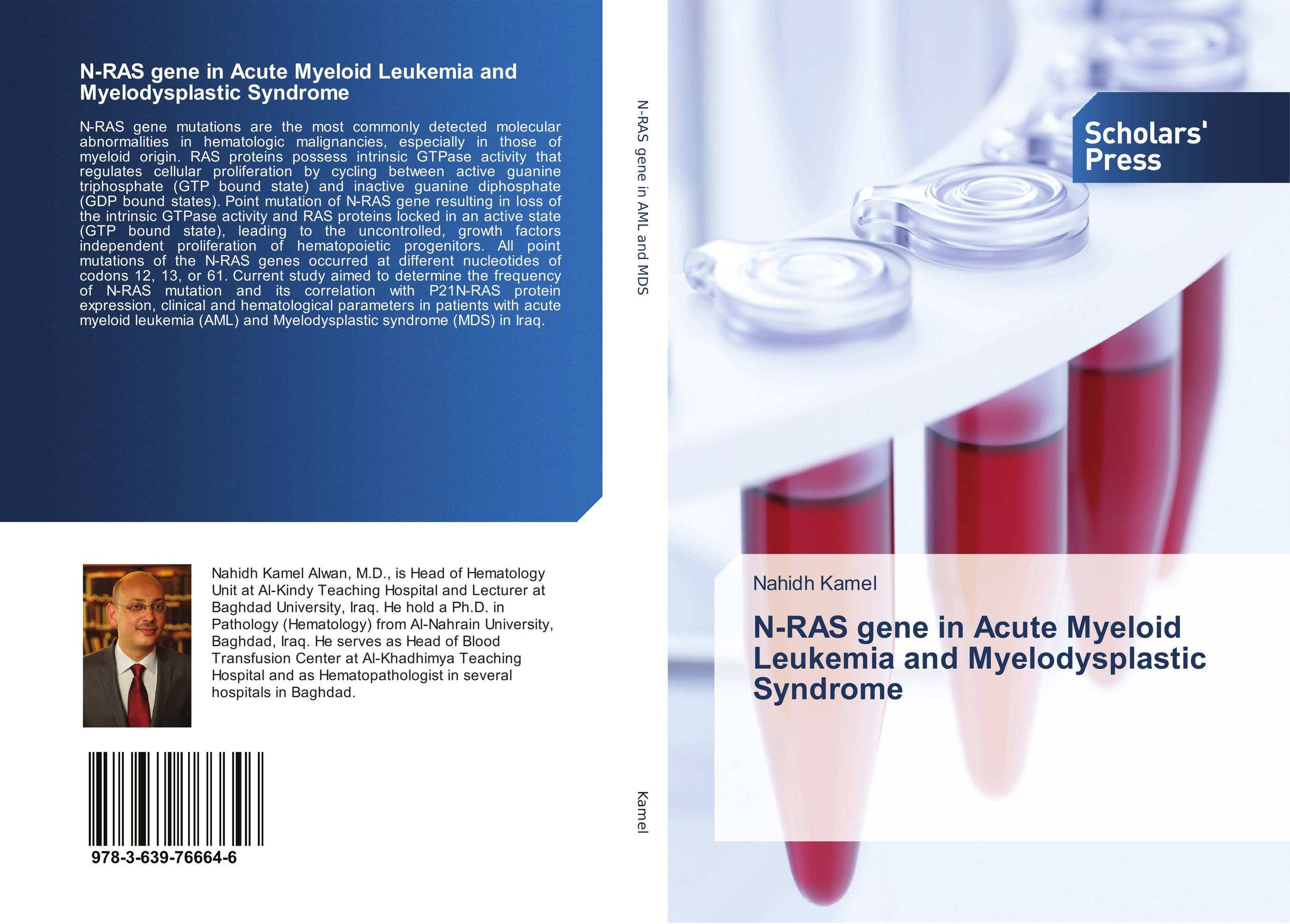 N-RAS gene in Acute Myeloid Leukemia and Myelodysplastic Syndrome affair of state an
