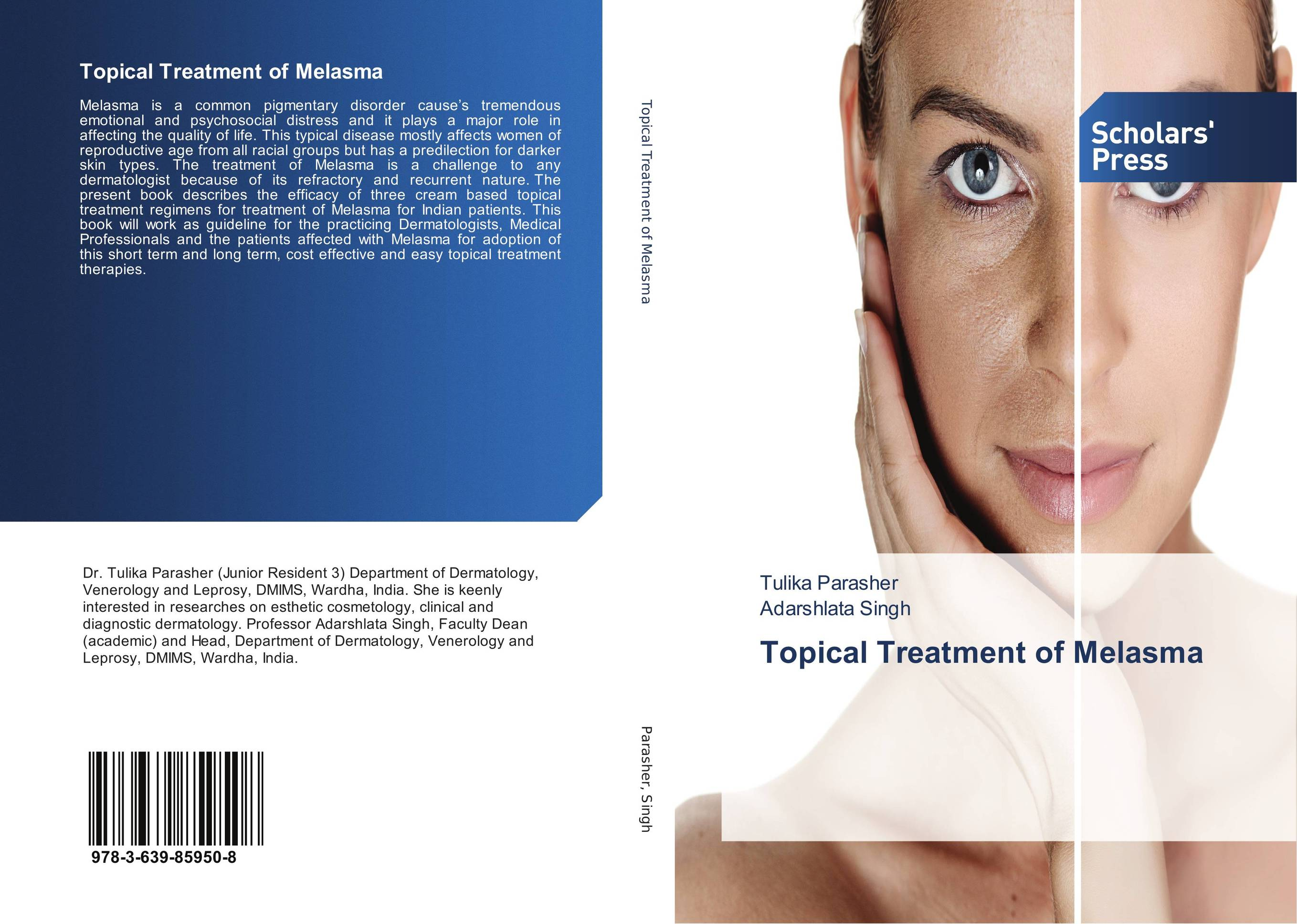 Topical Treatment of Melasma non allergic rhinitis factory price medical light cost for laser treatment