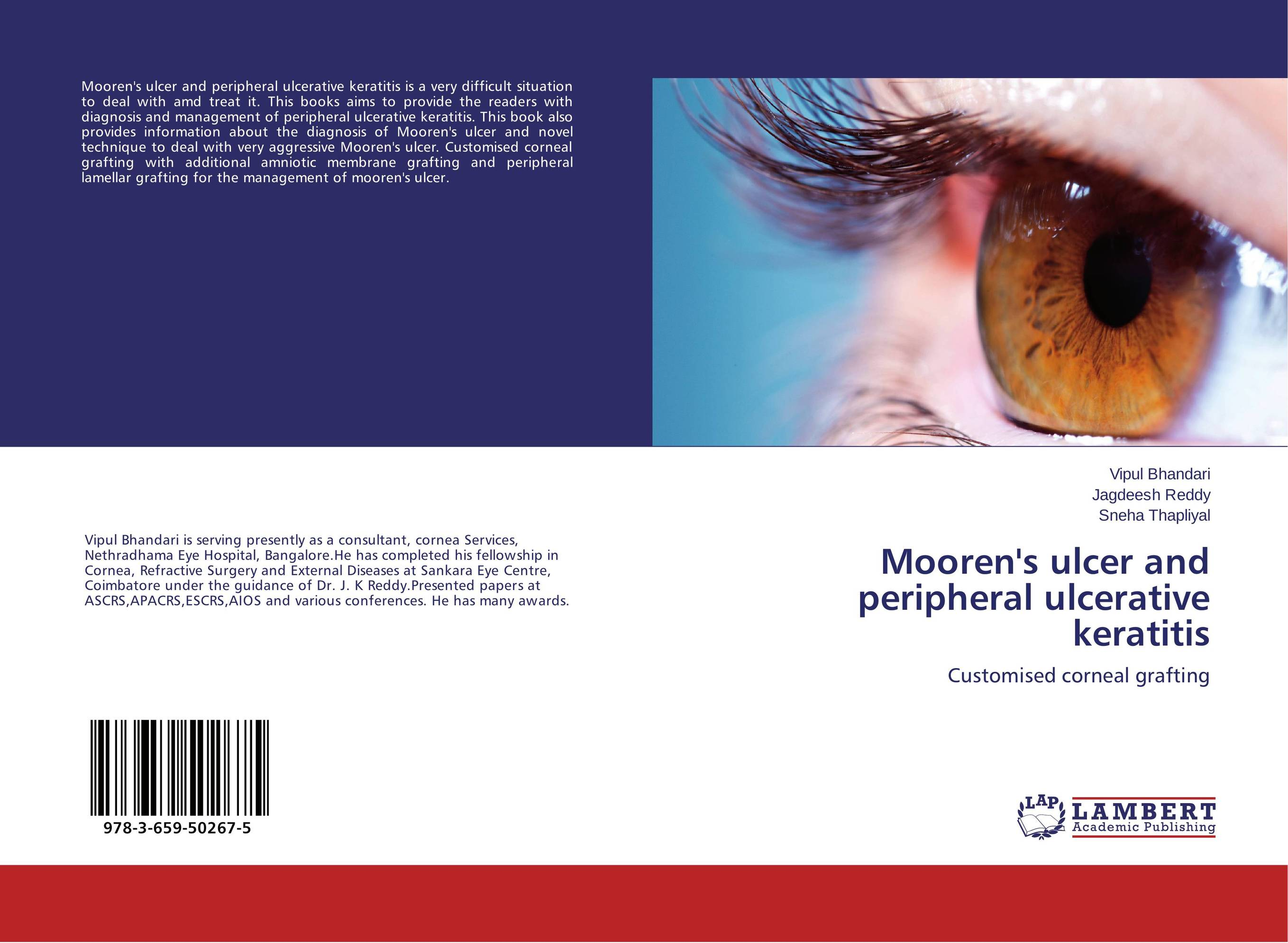 Mooren's ulcer and peripheral ulcerative keratitis mooren s ulcer and peripheral ulcerative keratitis