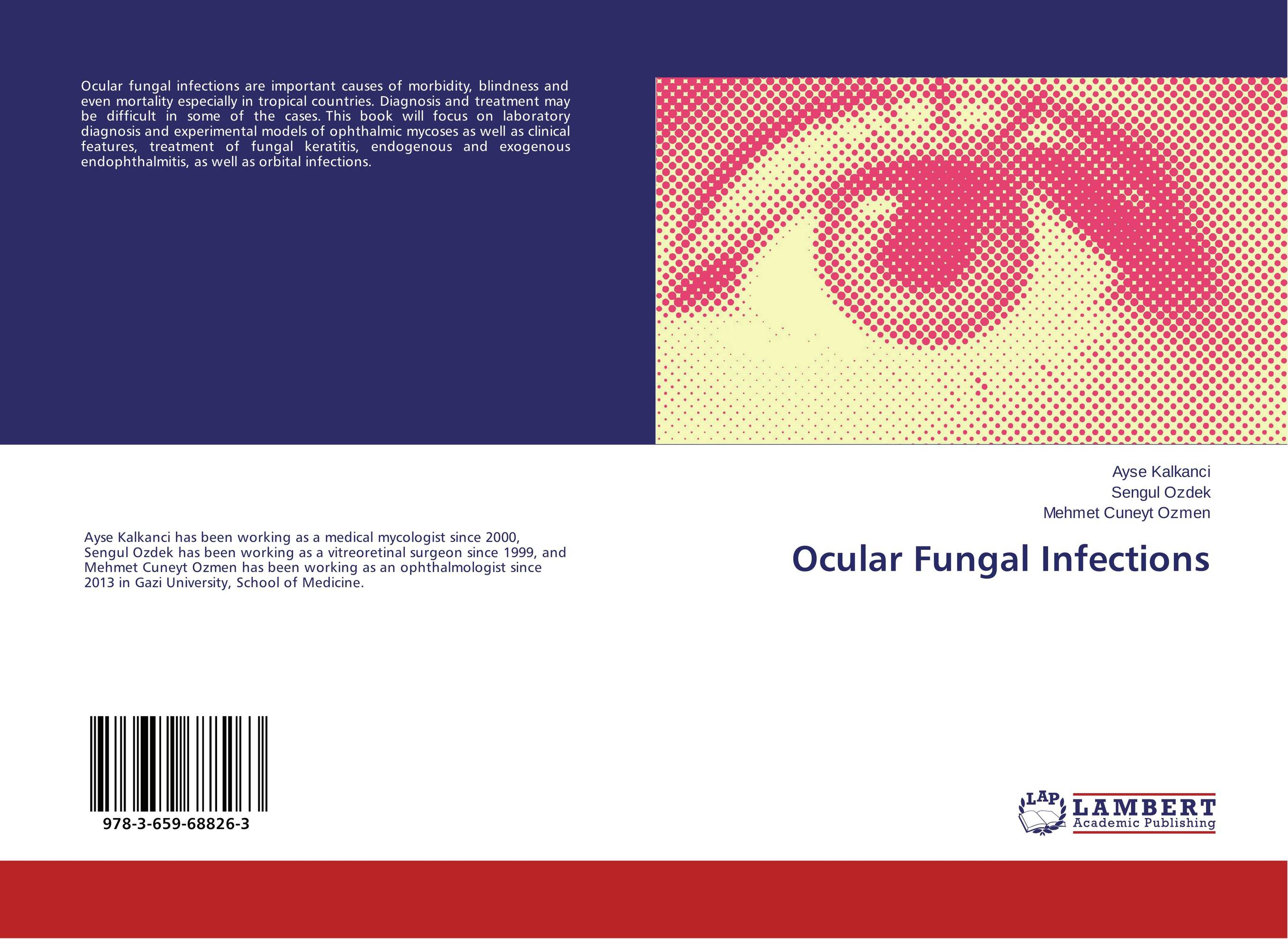 Ocular Fungal Infections