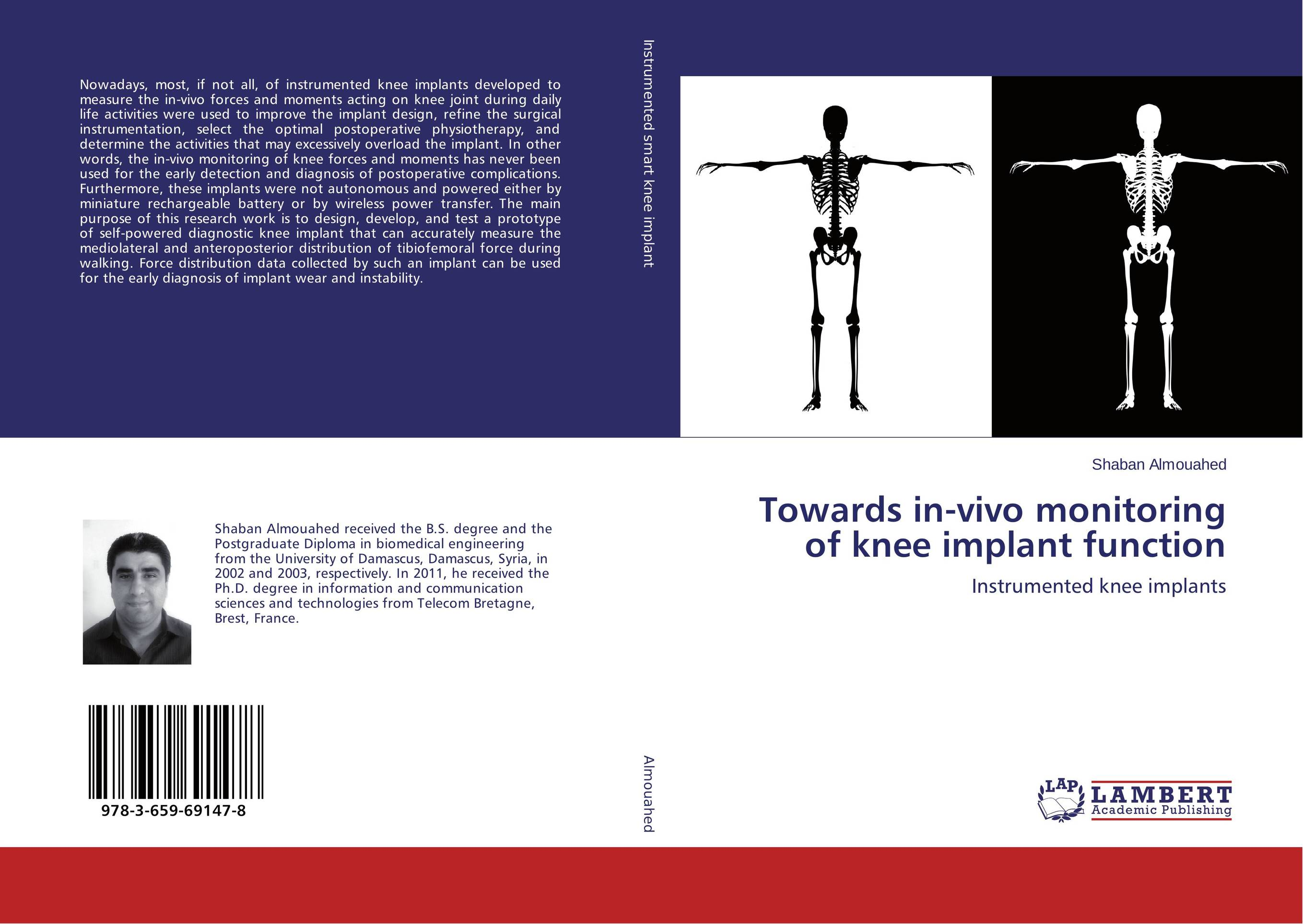 Towards in-vivo monitoring of knee implant function attachments retaining implant overdentures