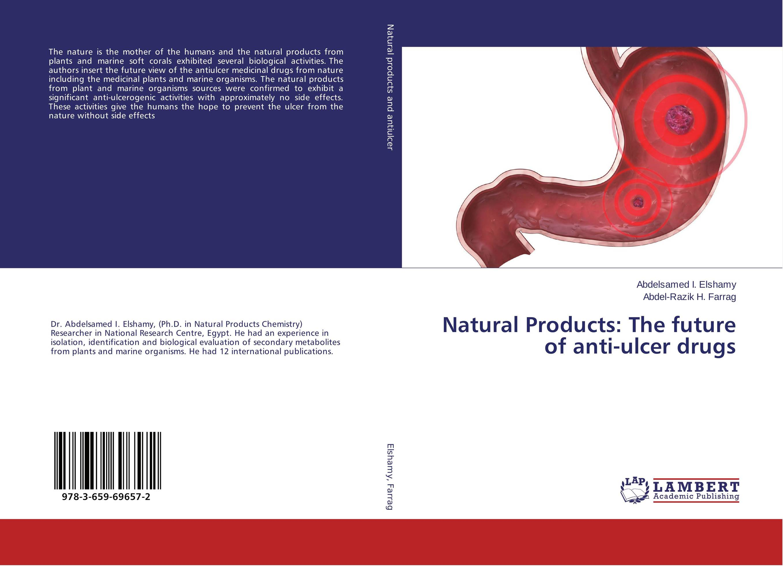 Natural Products: The future of anti-ulcer drugs