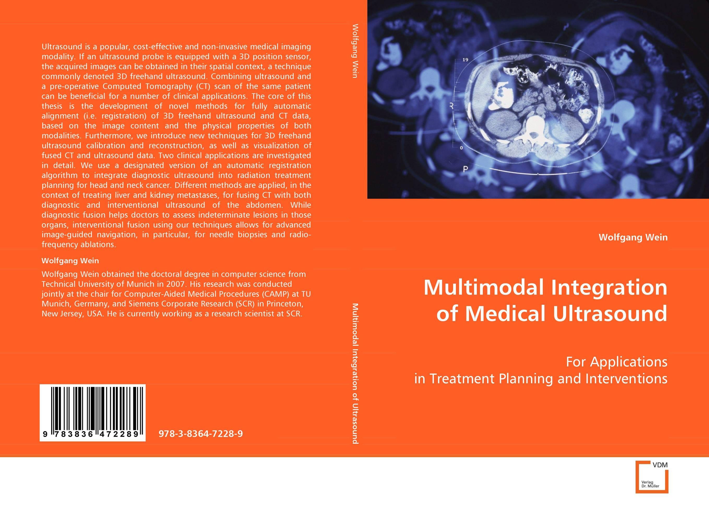 Multimodal Integration of Medical Ultrasound multimodal fusion of iris and fingerprint
