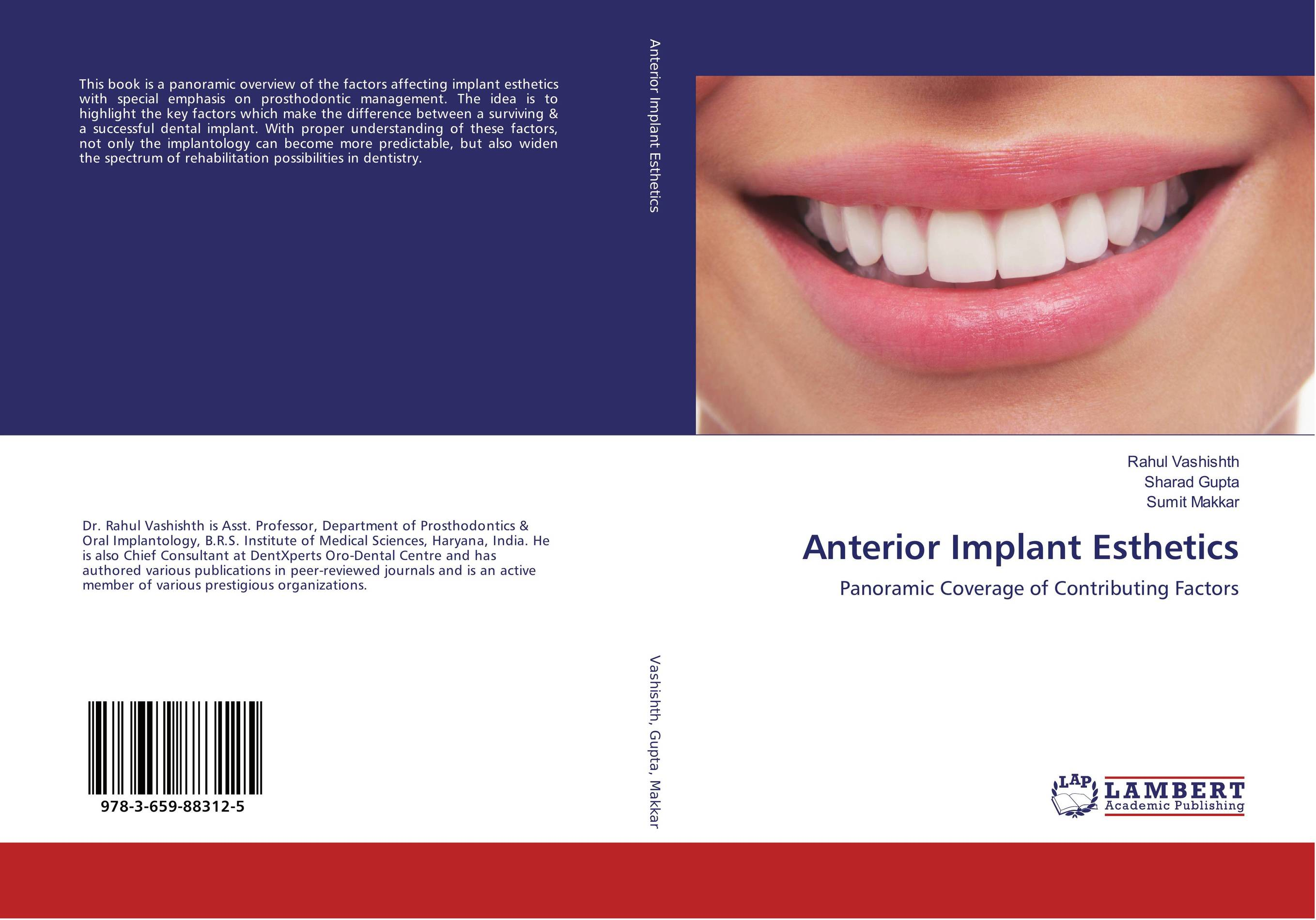 Anterior Implant Esthetics esthetics in implant dentistry