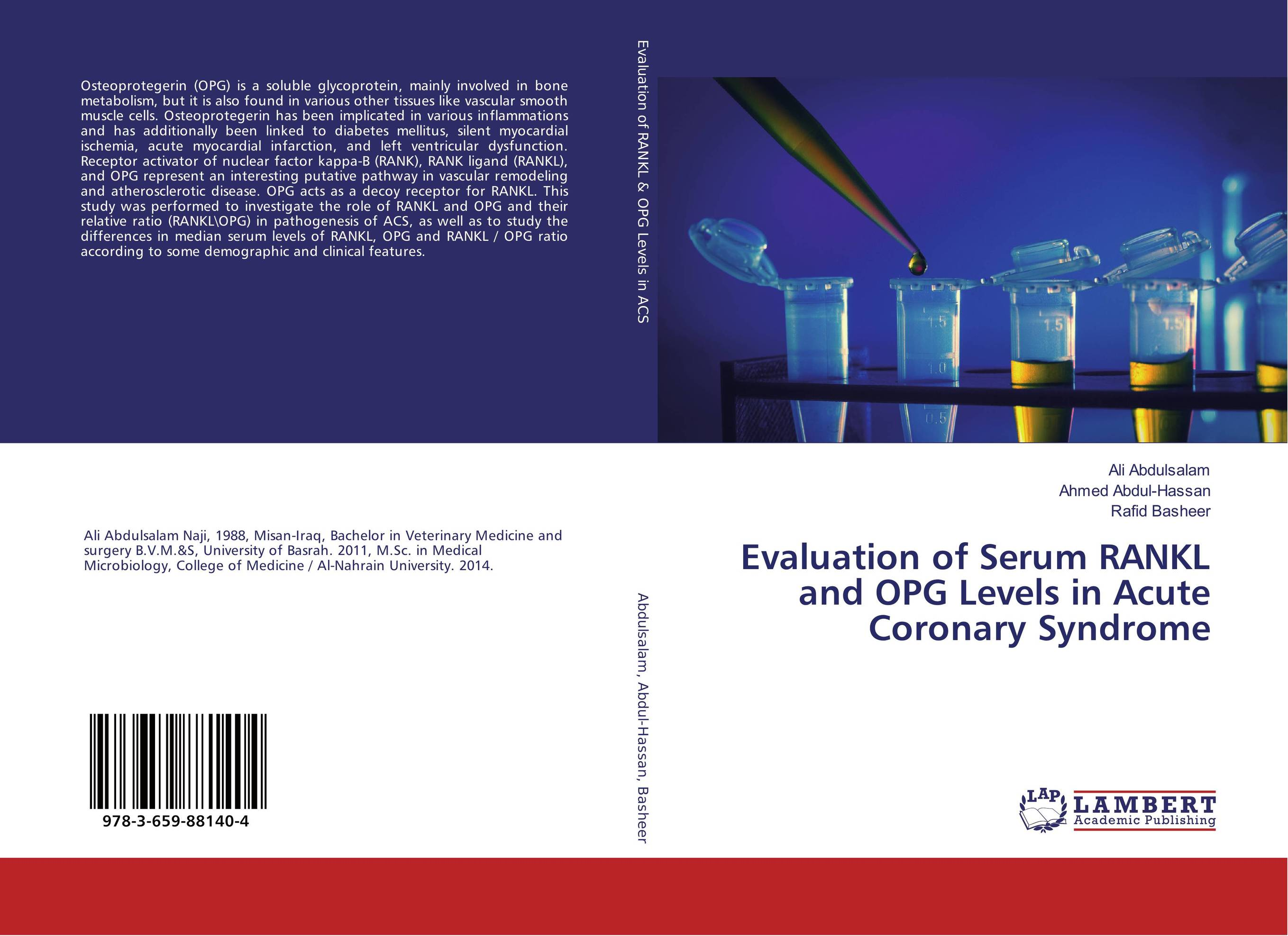 Evaluation of Serum RANKL and OPG Levels in Acute Coronary Syndrome production of recombinant rankl for in vitro osteoclastogenesis