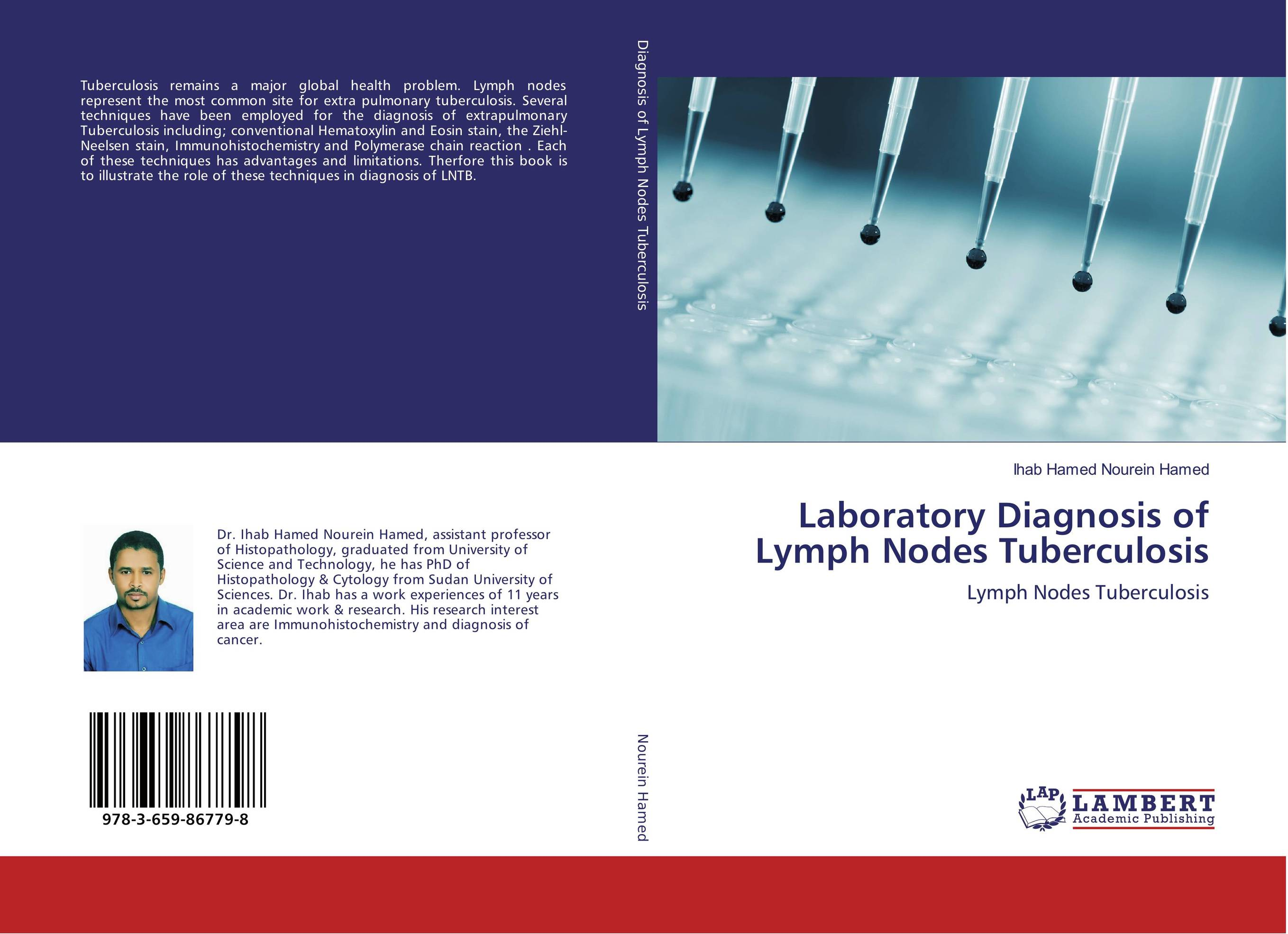 Laboratory Diagnosis of Lymph Nodes Tuberculosis new techniques for early diagnosis of rheumatoid arthritis