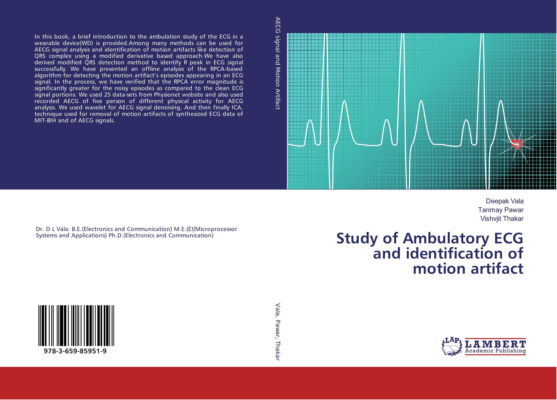 Study of Ambulatory ECG and identification of motion artifact skx 2000c ecg simulator ecg signal simulator signal generator 10 200bpm