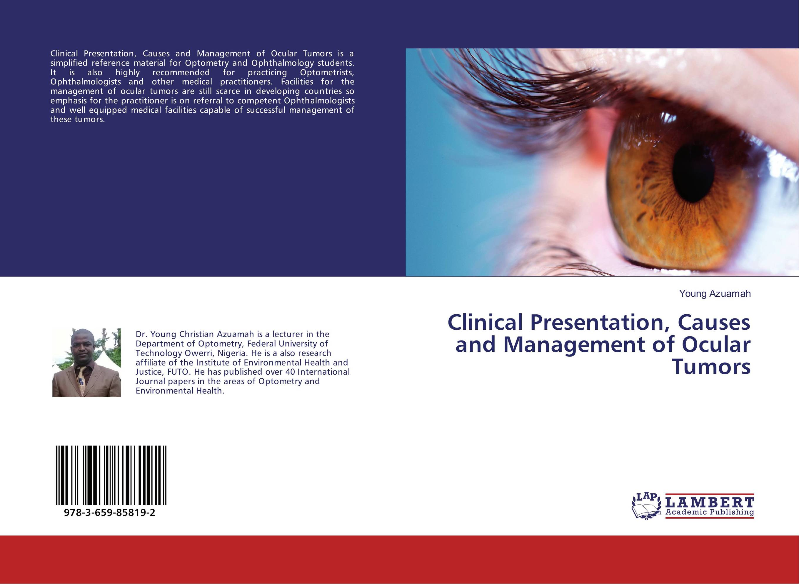 Clinical Presentation, Causes and Management of Ocular Tumors