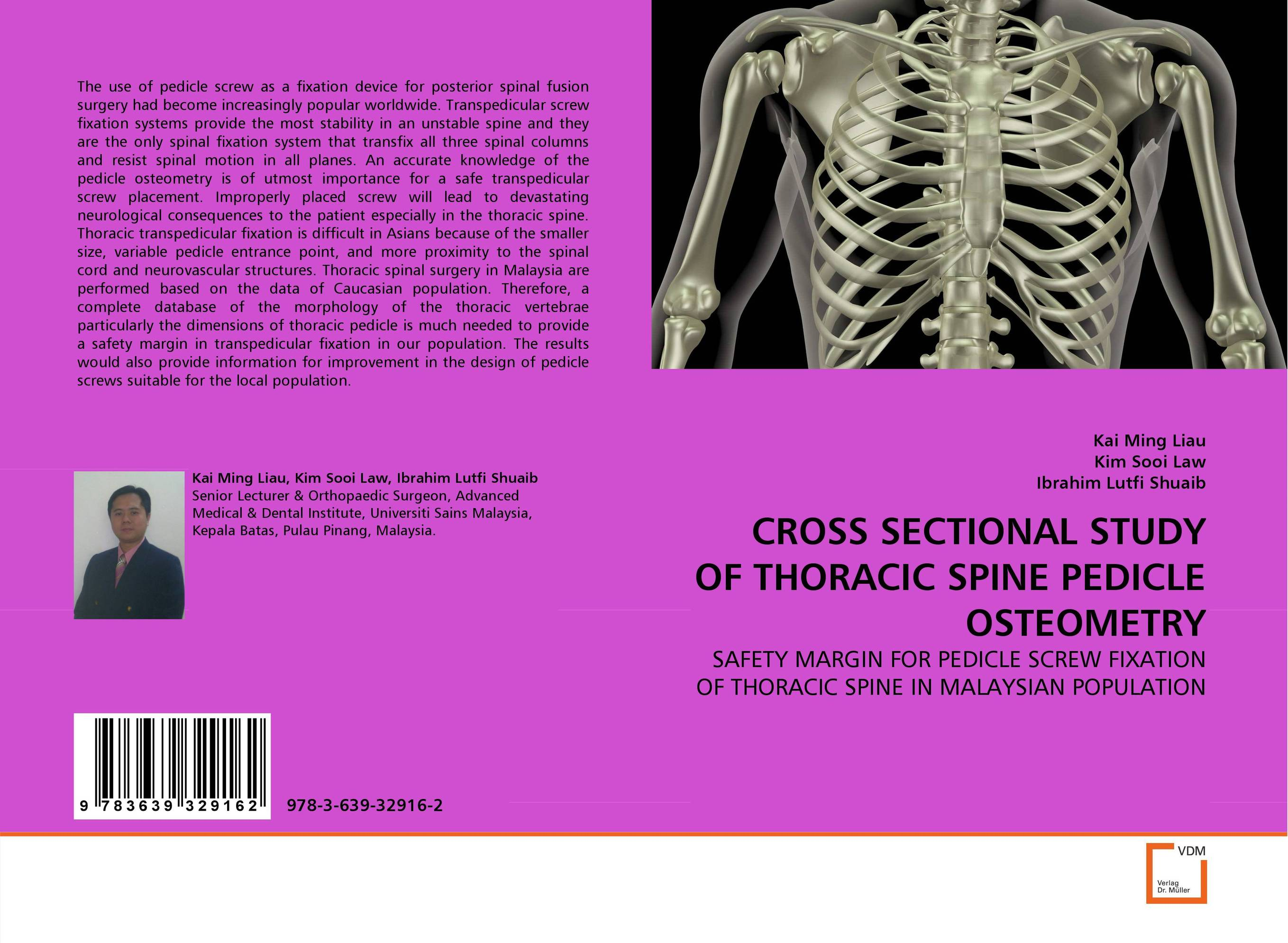 CROSS SECTIONAL STUDY OF THORACIC SPINE PEDICLE OSTEOMETRY