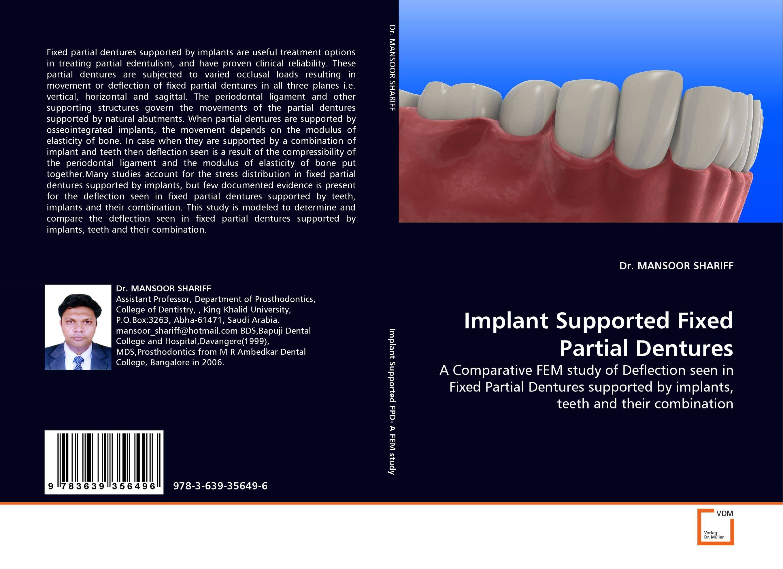 Implant Supported Fixed Partial Dentures esthetics in implant dentistry
