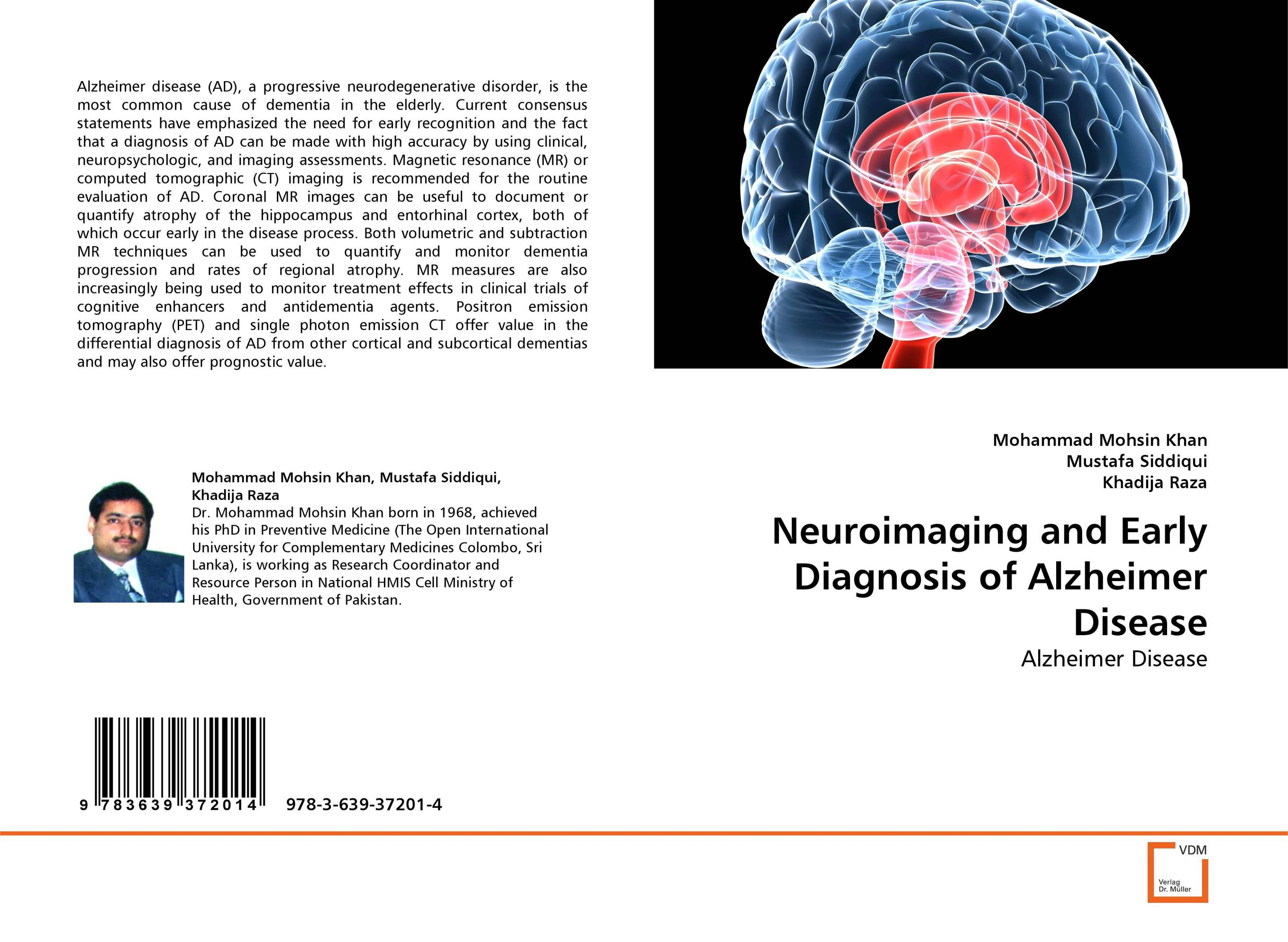 Neuroimaging and Early Diagnosis of Alzheimer Disease clinical significance of electro diagnosis in disc herniation