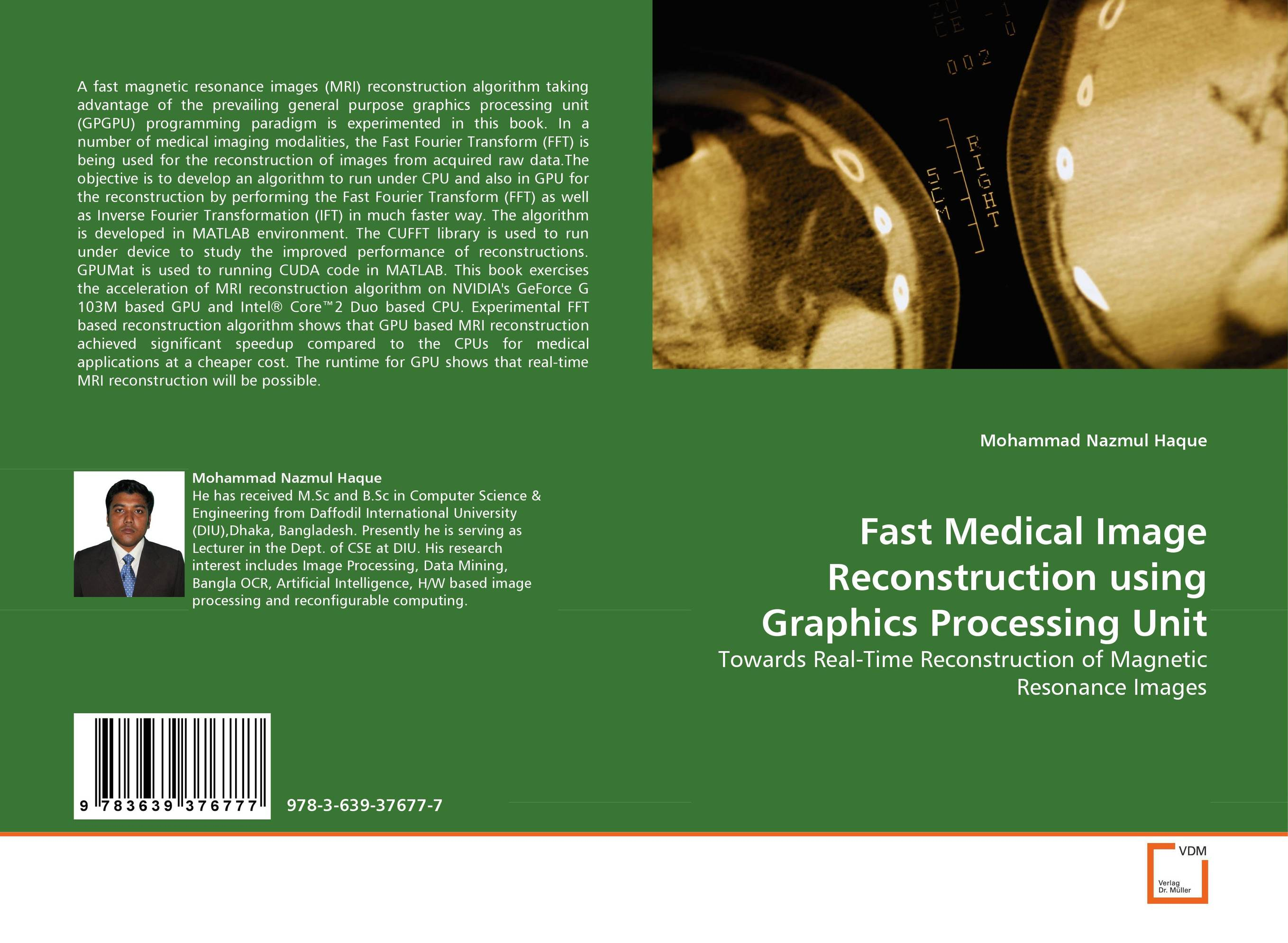 Fast Medical Image Reconstruction using Graphics Processing Unit reconstruction in philosophy