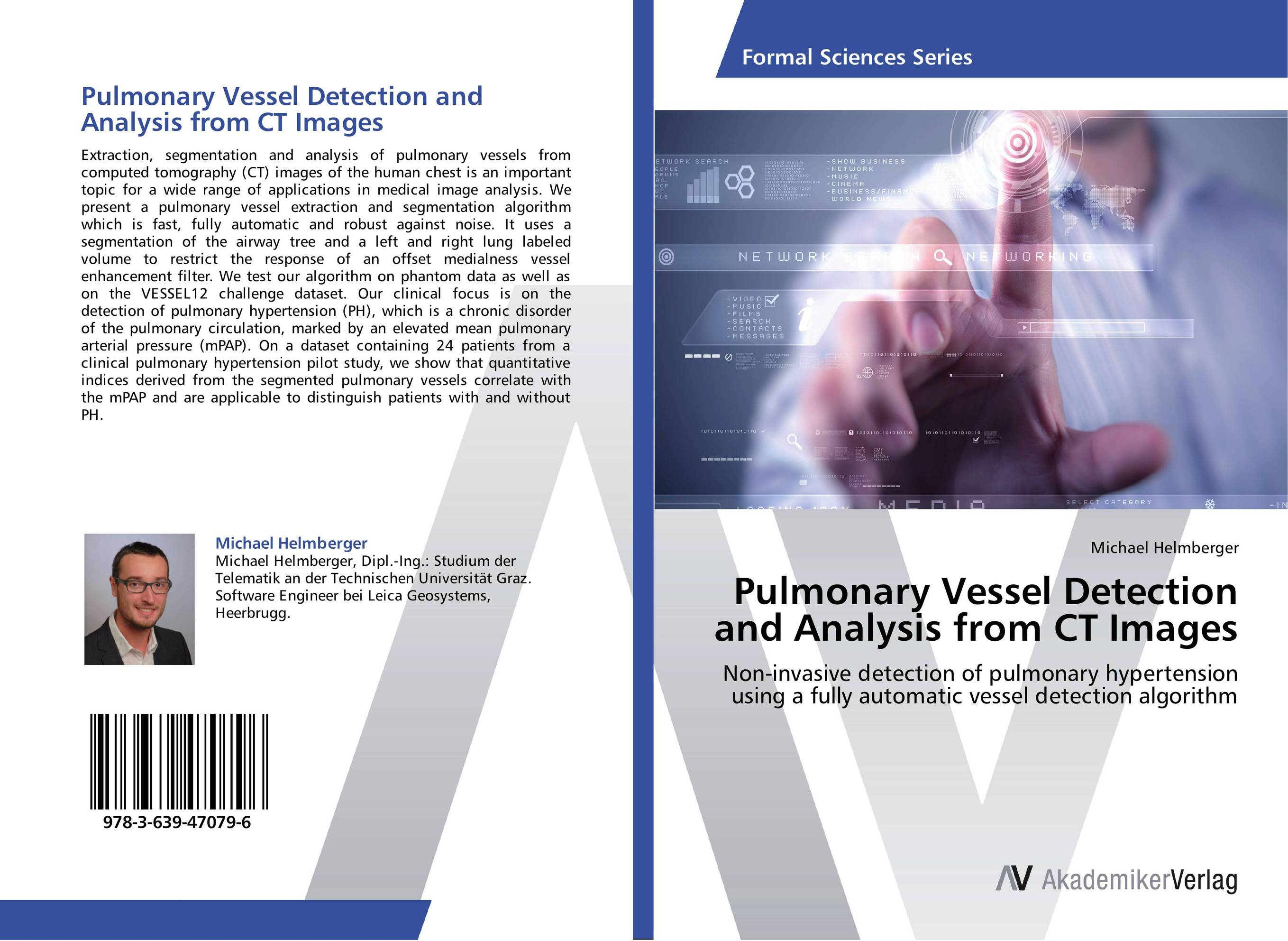 Pulmonary Vessel Detection and Analysis from CT Images