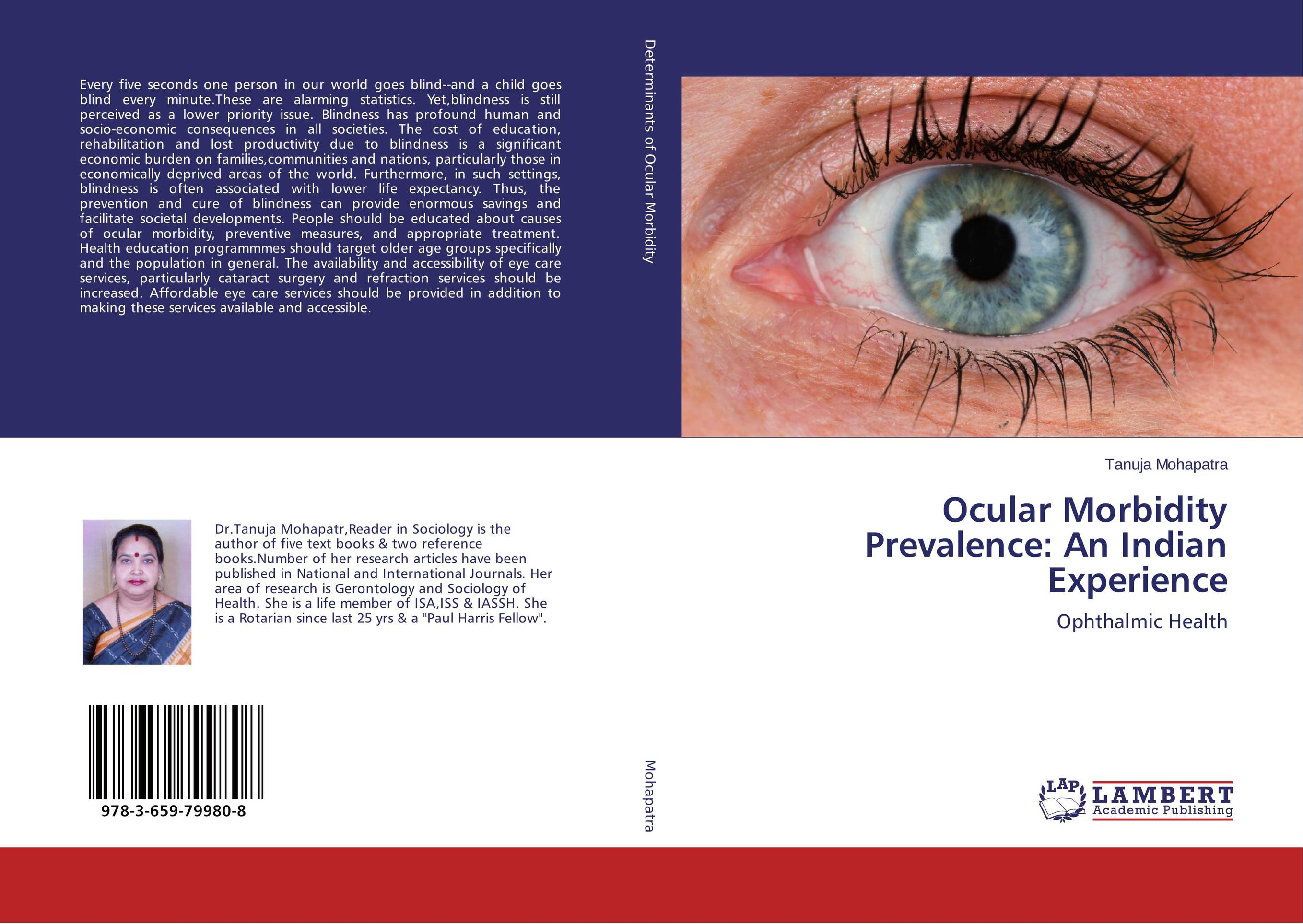 Ocular Morbidity Prevalence: An Indian Experience