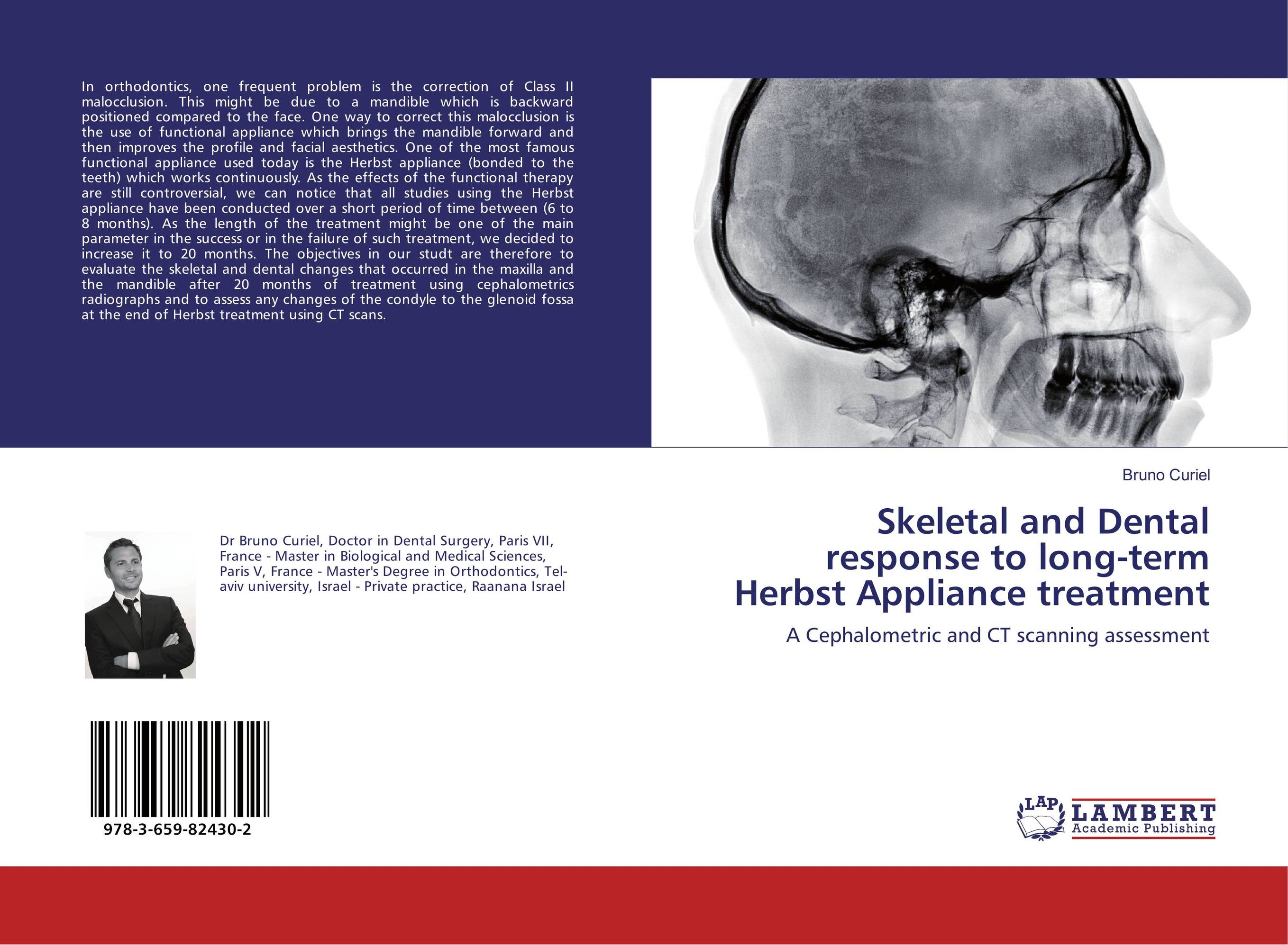 Skeletal and Dental response to long-term Herbst Appliance treatment