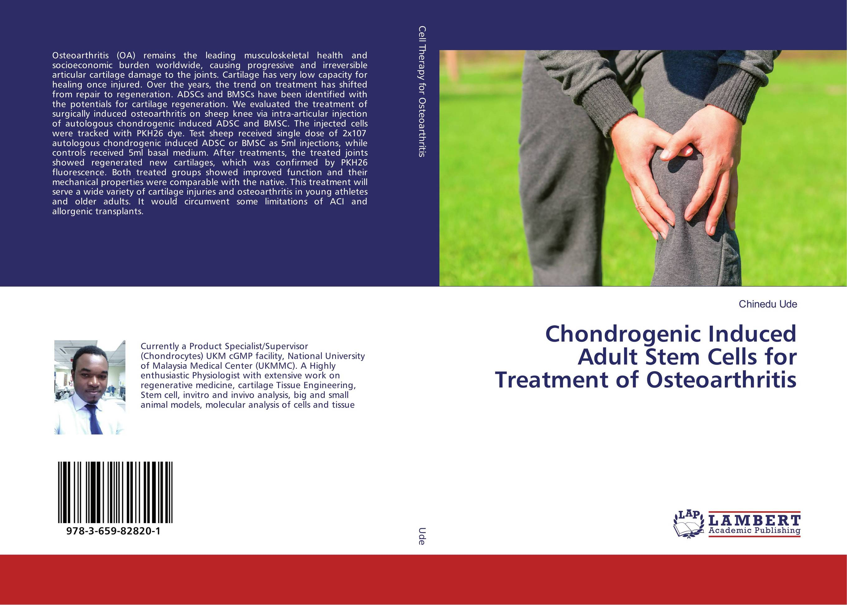 Chondrogenic Induced Adult Stem Cells for Treatment of Osteoarthritis