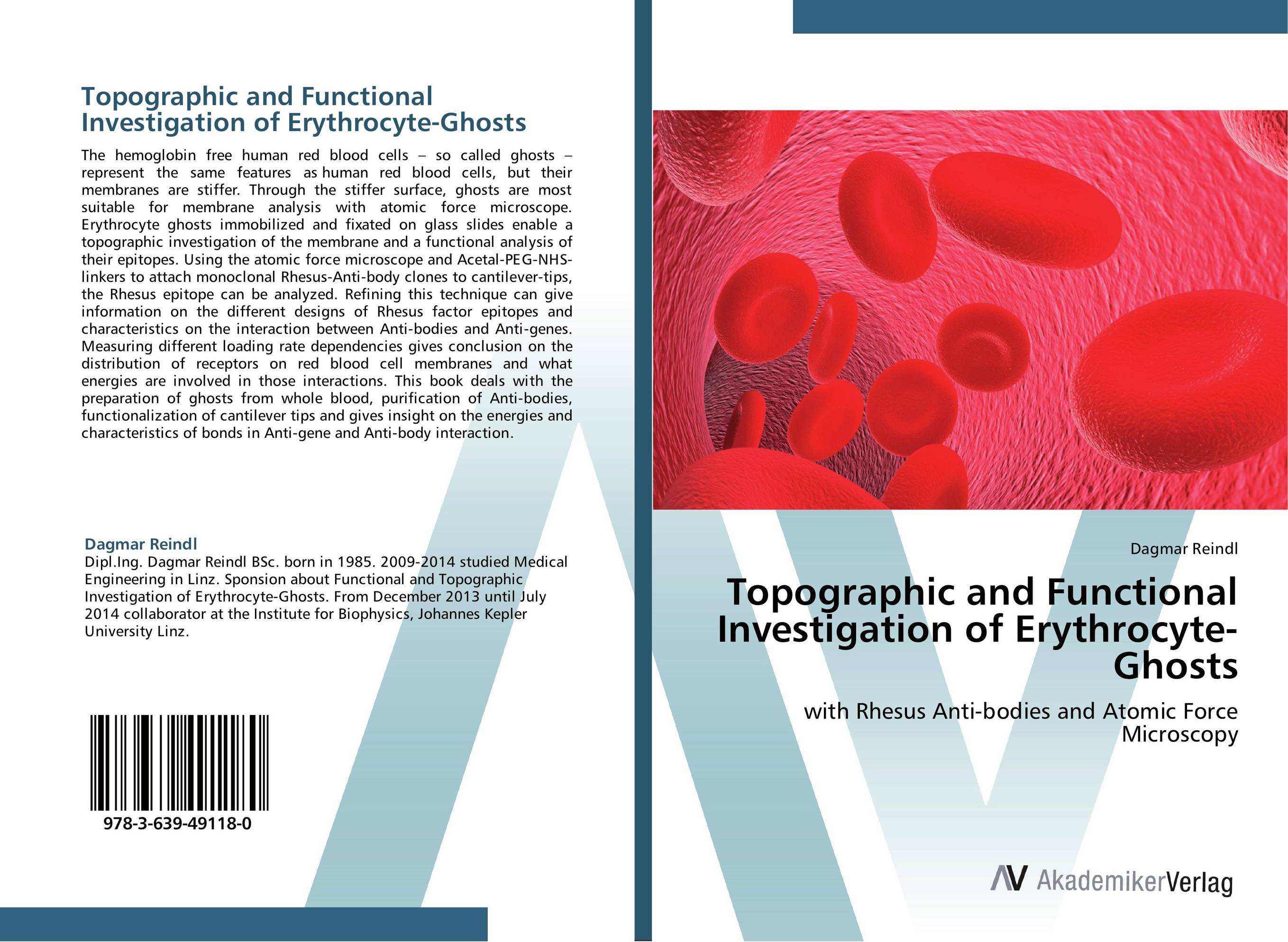 Topographic and Functional Investigation of Erythrocyte-Ghosts new epitome of human red blood cell destruction