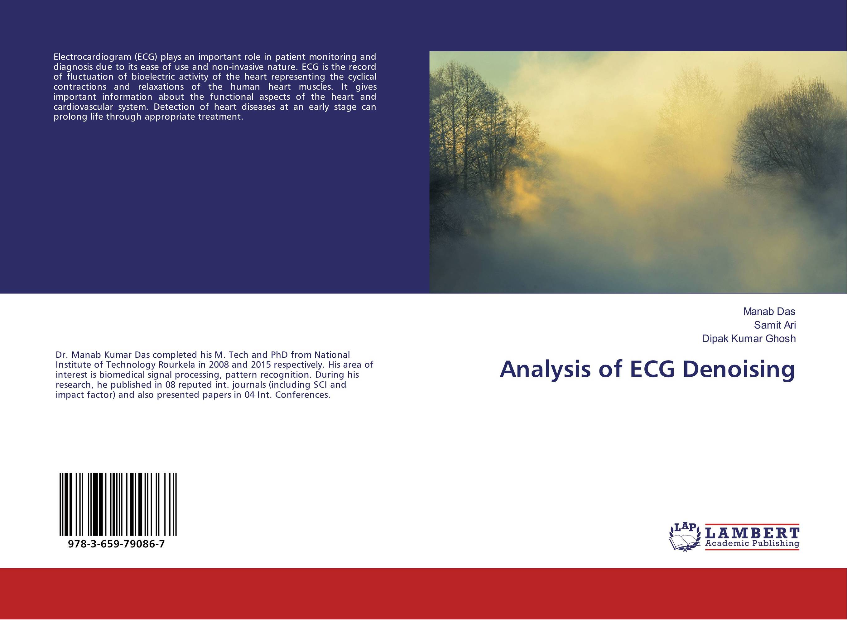 Analysis of ECG Denoising enovo1 1 hi q human heart anatomical model of the heart of the heart physician teaching tools