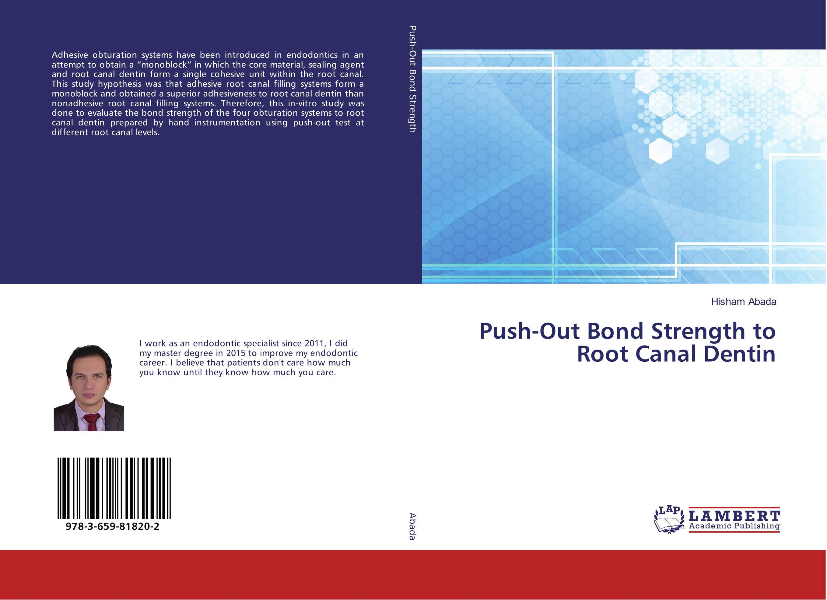 Push-Out Bond Strength to Root Canal Dentin recent advances in root canal irrigation techniques