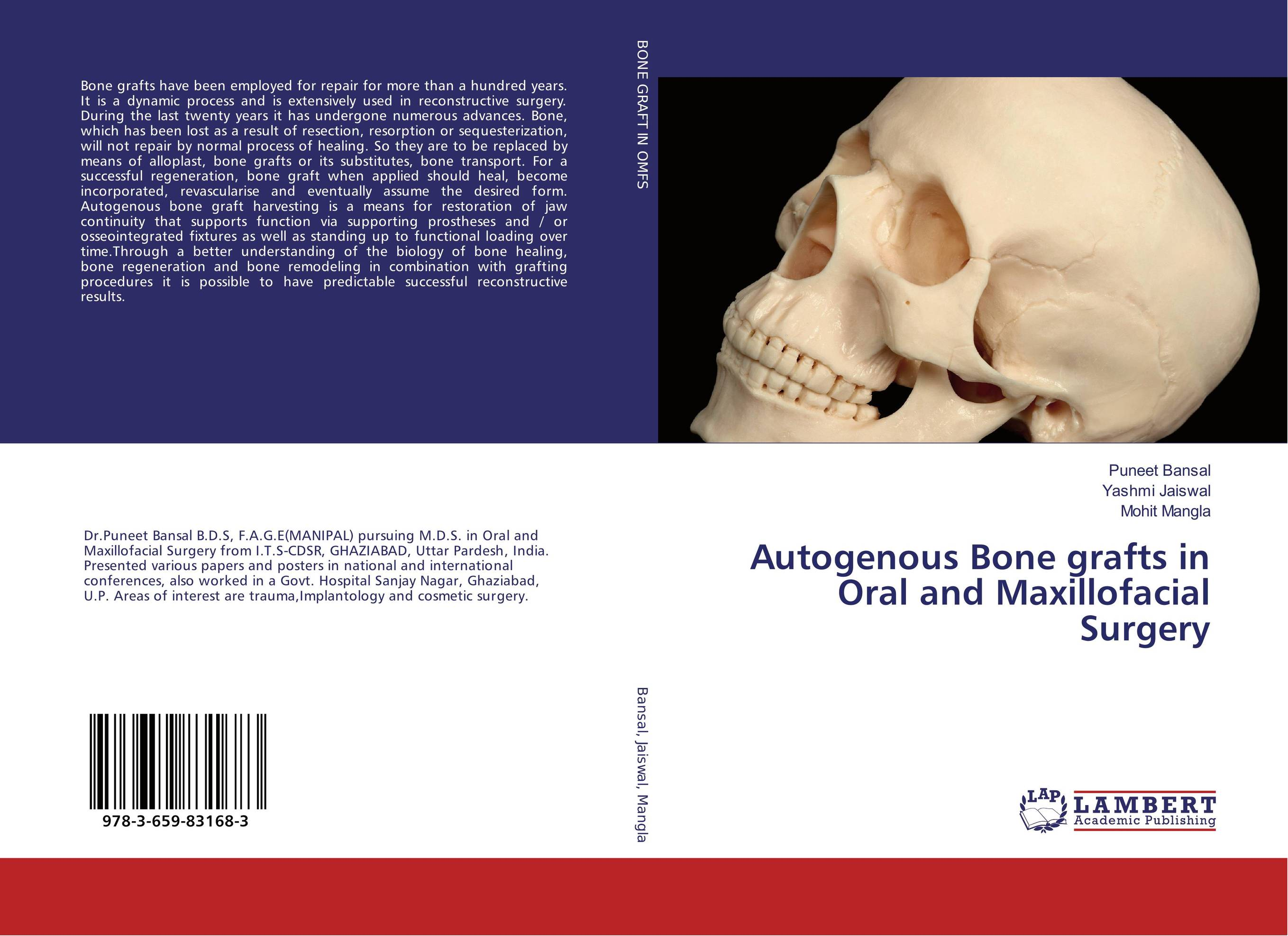 Autogenous Bone grafts in Oral and Maxillofacial Surgery uj moore principles of oral and maxillofacial surgery 6e