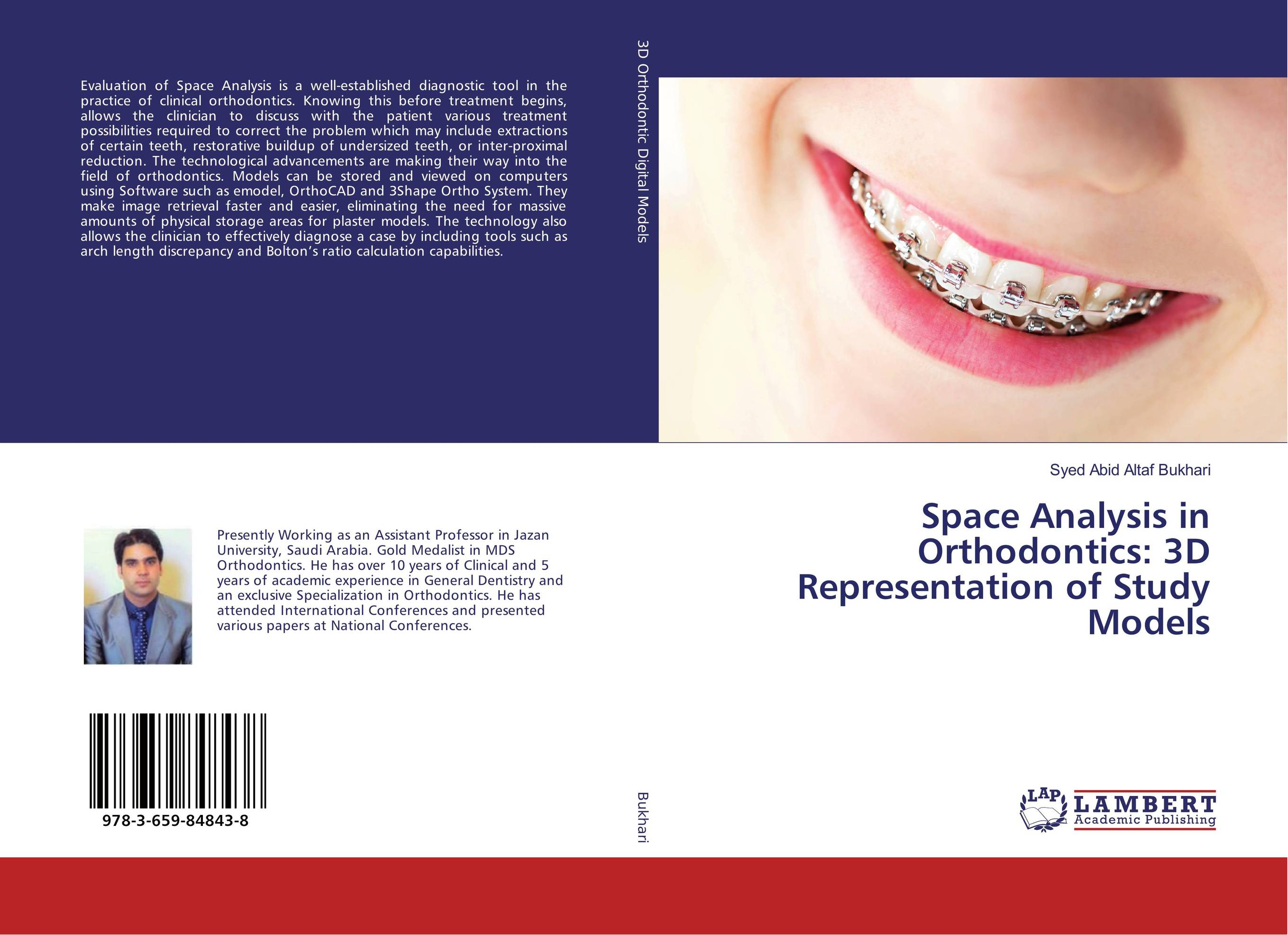 Space Analysis in Orthodontics: 3D Representation of Study Models occlusion in orthodontics