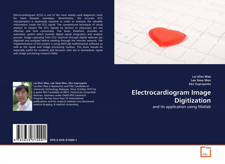 Electrocardiogram Image Digitization skx 2000c ecg simulator ecg signal simulator signal generator 10 200bpm