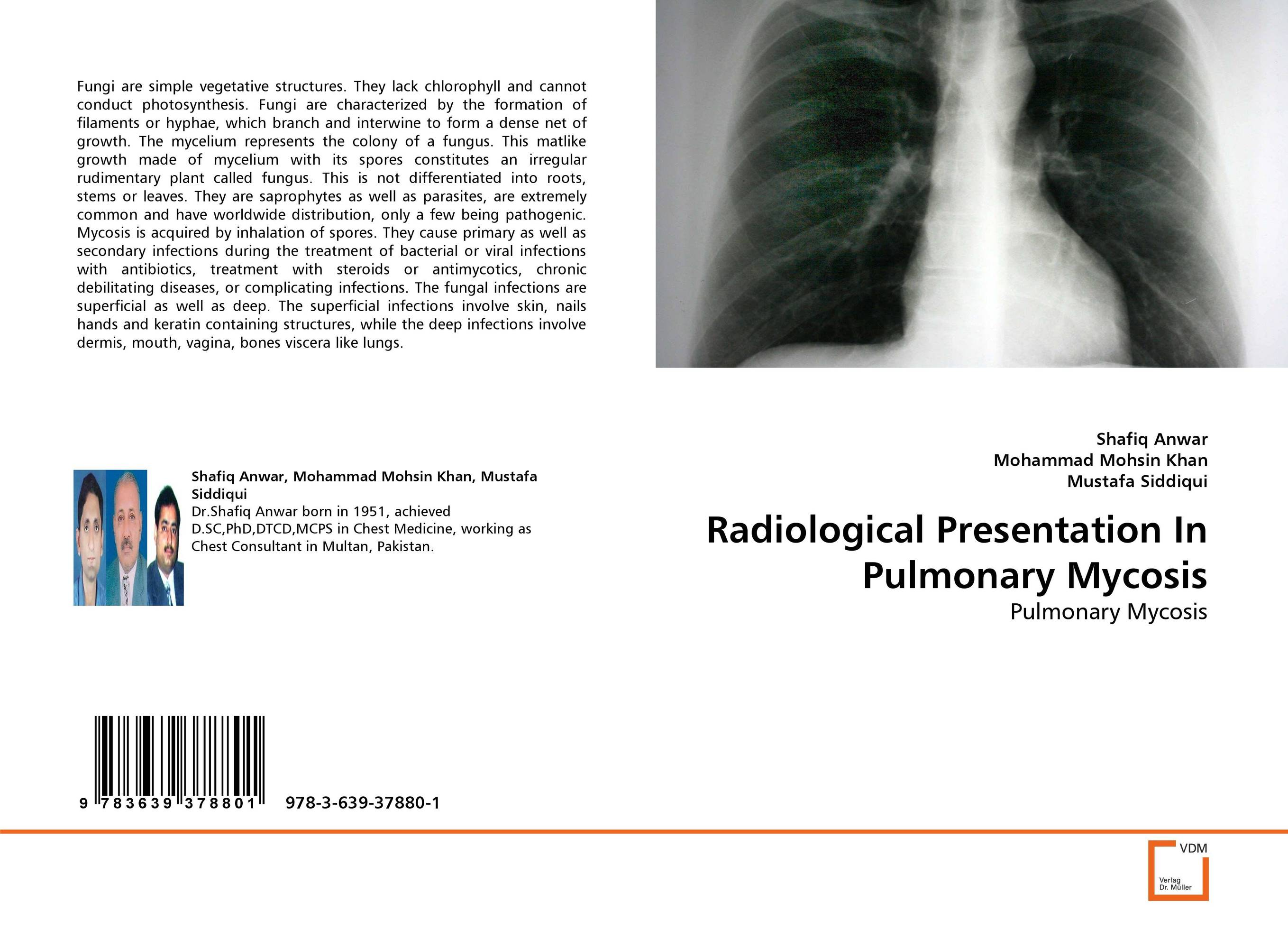 Radiological Presentation In Pulmonary Mycosis seeing things as they are