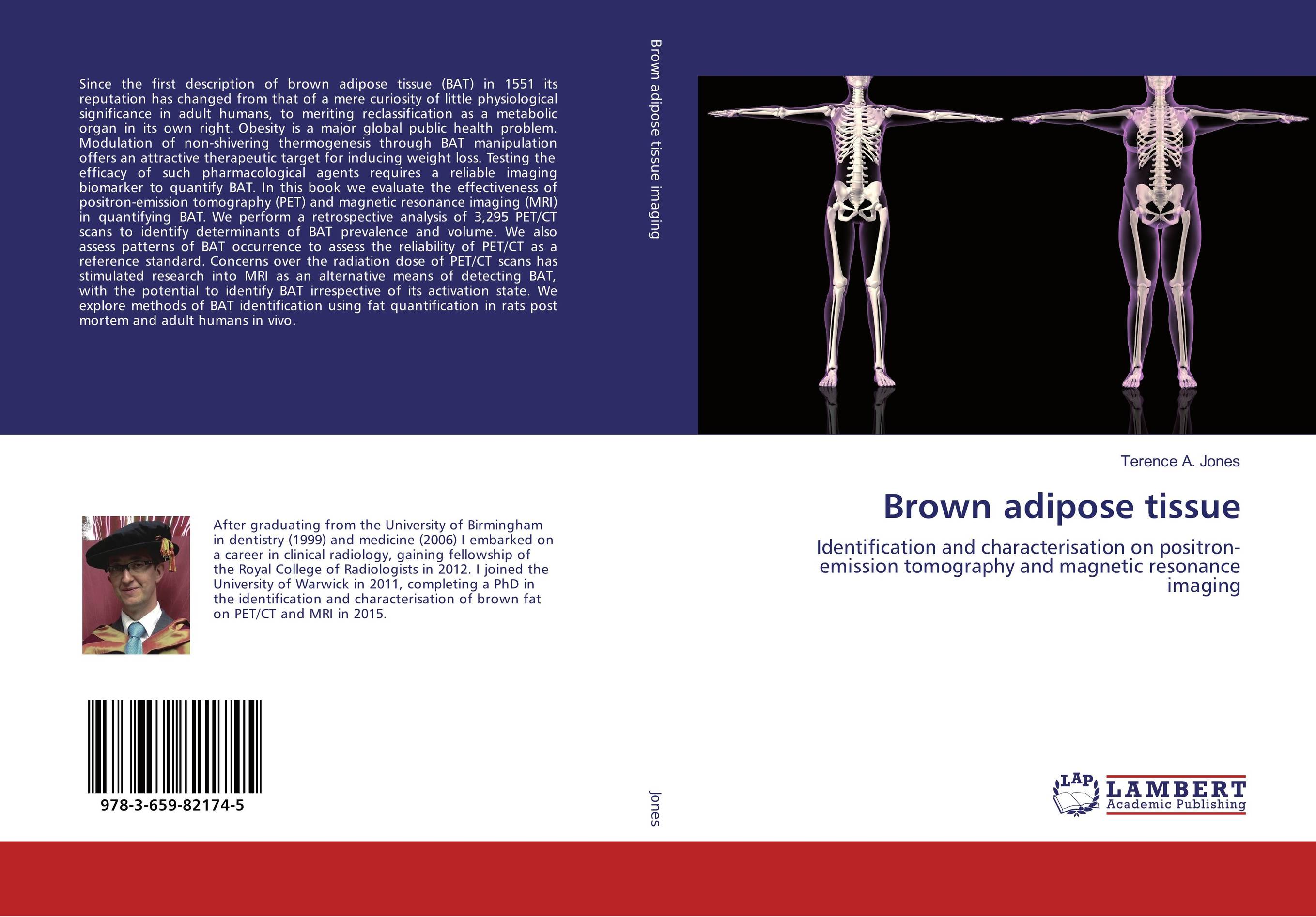 Brown adipose tissue structural organization of a leaf nosed bat