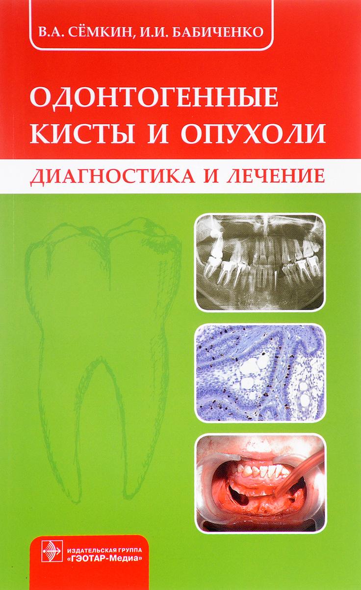 Одонтогенные кисты и опухоли. В. А. Сёмкин, И. И. Бабиченко
