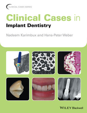 Clinical Cases in Implant Dentistry attachments retaining implant overdentures