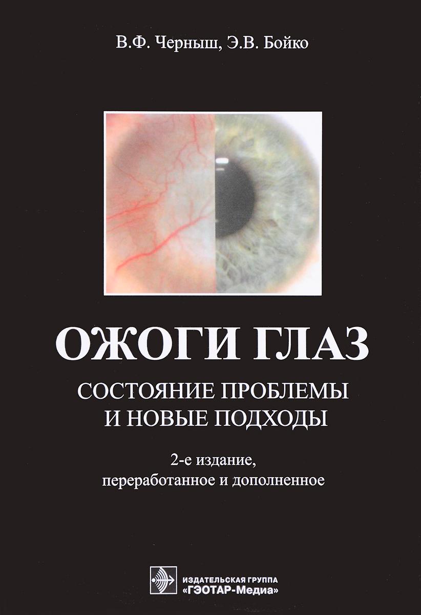 Ожоги глаз. Состояние проблемы и новые подходы. В. Ф. Черныш, Э. В. Бойко