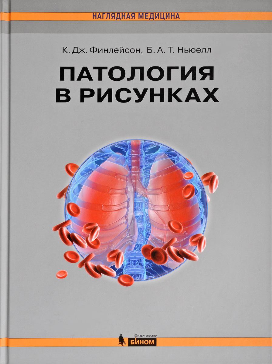 К. Дж. Финлейсон, Б. А. Т. Ньюелл Патология в рисунках микропрепараты по патологической анатомии