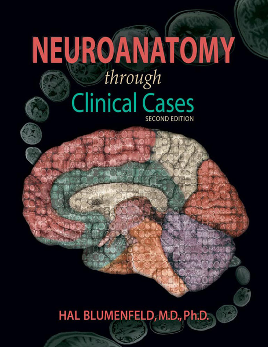 Neuroanatomy through Clinical Cases with ebook 10pcs free shipping a1694 c4467 2sc4467 2sa1694 to 3p stereo pair tube 100% new original quality assurance
