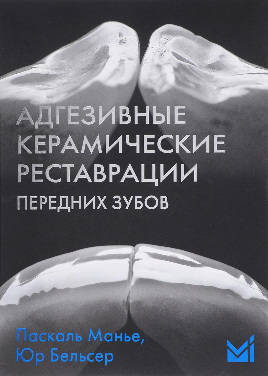 Адгезивные керамические реставрации передних зубов