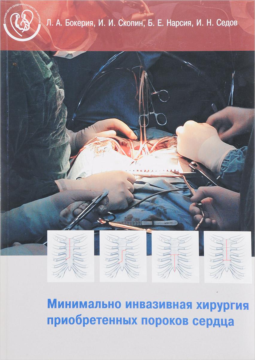 Минимально инвазивная хирургия приобретенных пороков сердца