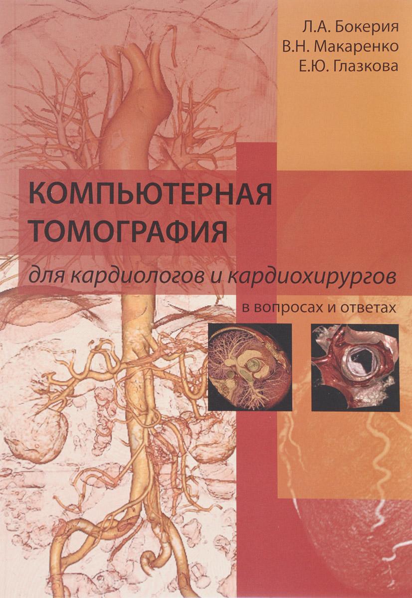 Компьютерная томография для кардиологов и кардиохирургов в вопросах и ответах