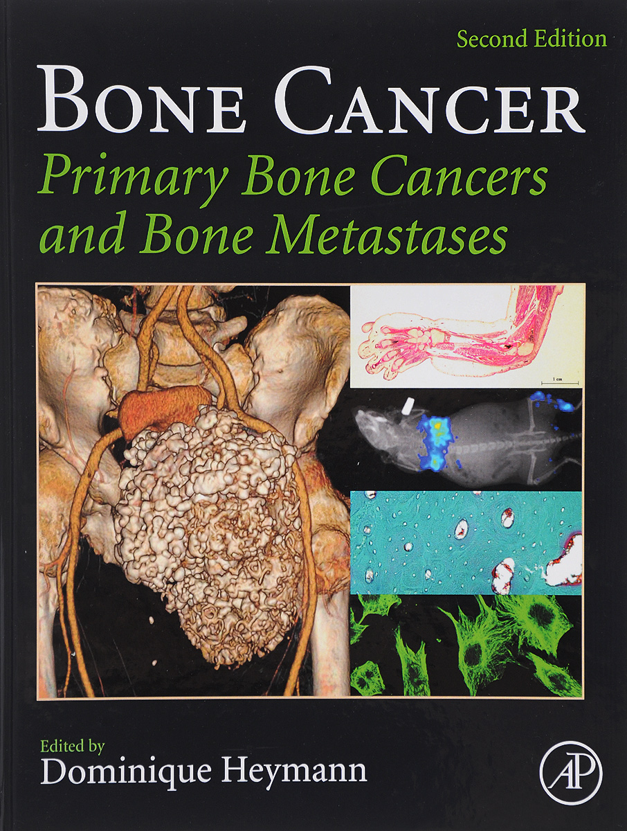 Bone Cancer: Primary Bone Cancers and Bone Metastases the model of foot bone human skeleton anatomical model