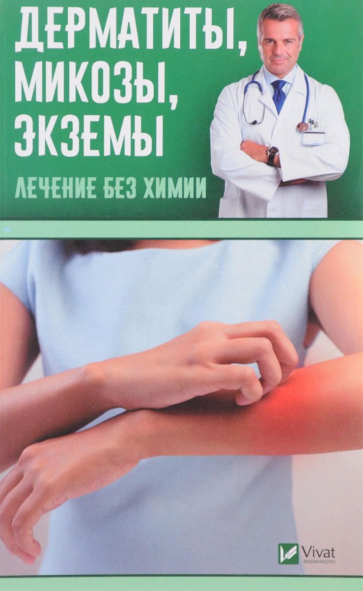 Zakazat.ru: Дерматиты, микозы,экземы. Лечение без химии. Валентина Левченко
