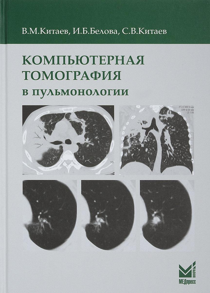 Компьютерная томография в пульмонологии. В. М. Китаев, И. Б. Белова, С. В. Китаев