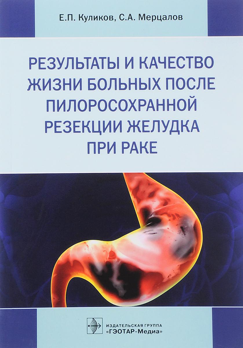 С. А. Мерцалов, Е.П. Куликов Результаты и качество жизни больных после пилоросохранной резекции желудка резекция и чрезбрюшинная экстирпация желудка